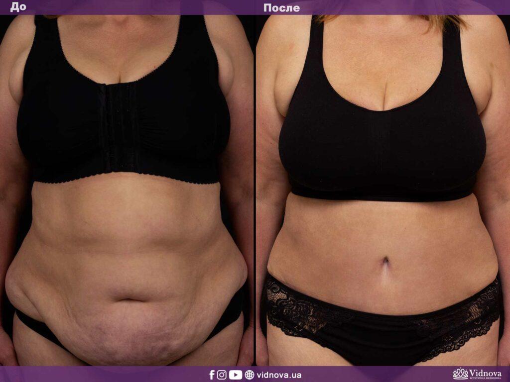 абдоминопластика (пластика живота) фото до и после