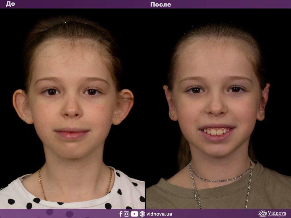 Пластика ушей (отопластика) 1vs 2 1 1024x768 - клиника VIdnova