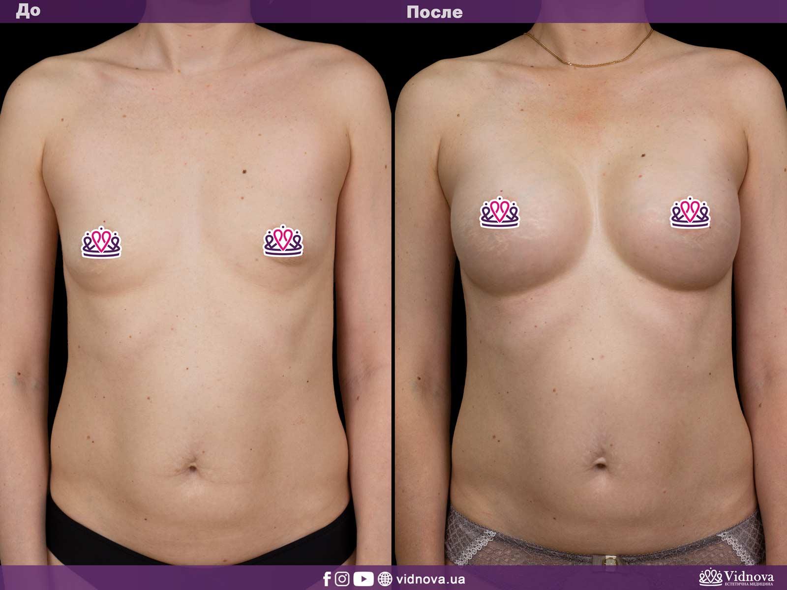Увеличение груди: Фото ДО и ПОСЛЕ - Пример №24-1 - Клиника Vidnova