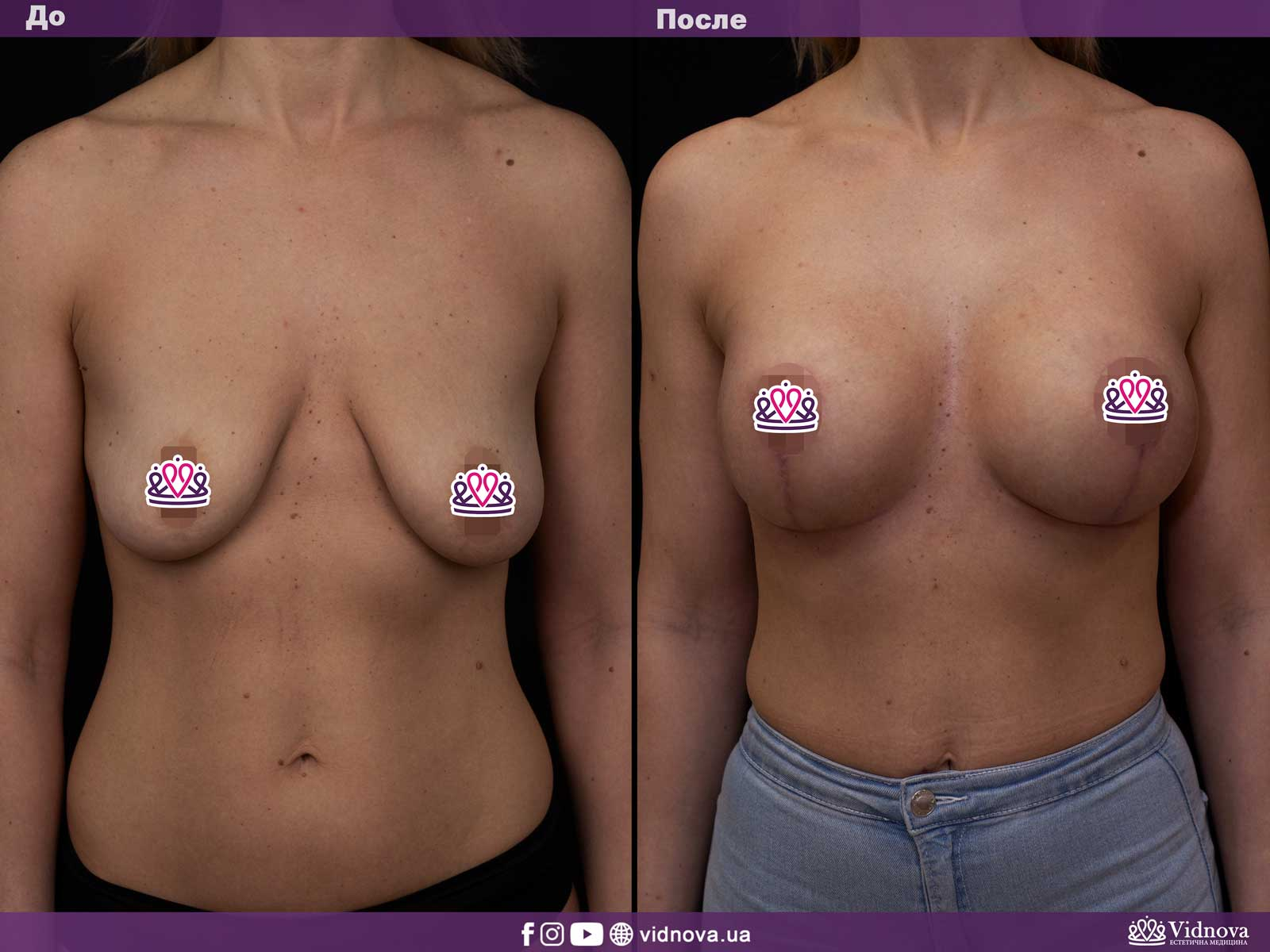 Подтяжка груди: Фото ДО и ПОСЛЕ - Пример №3-1 - Клиника Vidnova