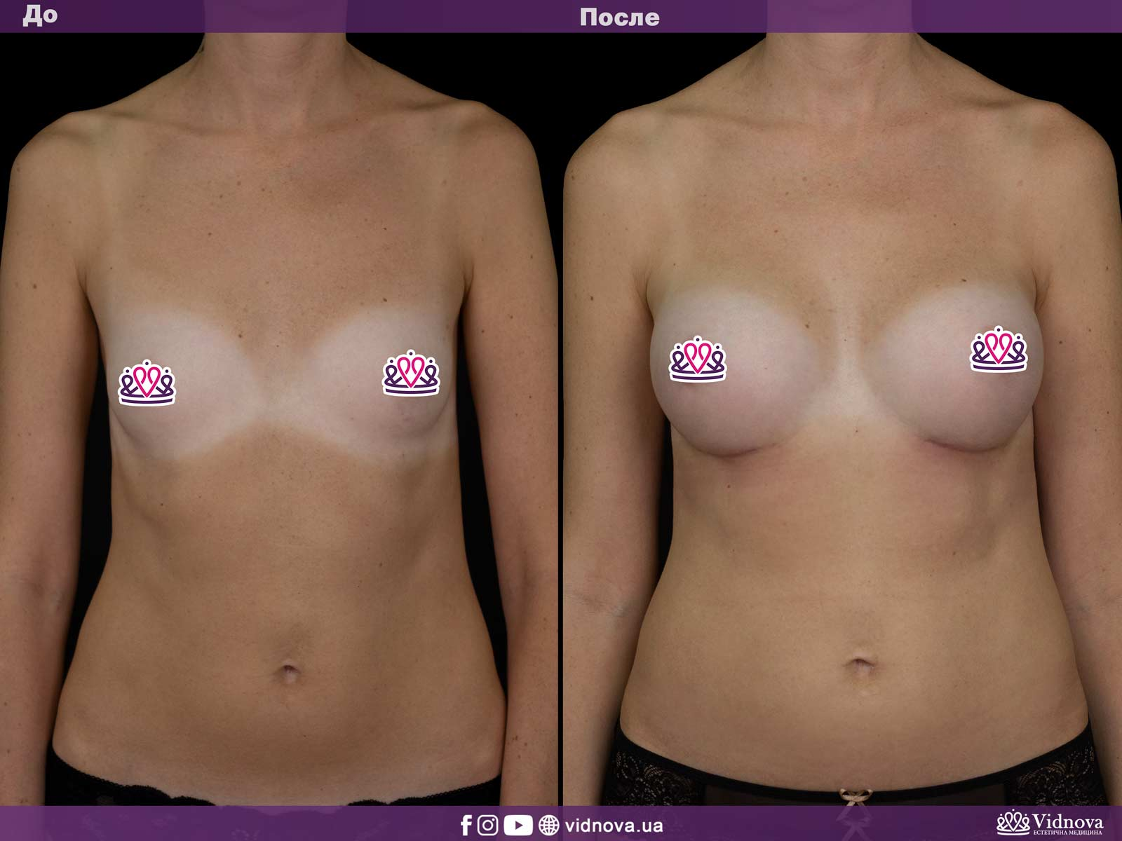 Увеличение груди: Фото ДО и ПОСЛЕ - Пример №11-1 - Клиника Vidnova