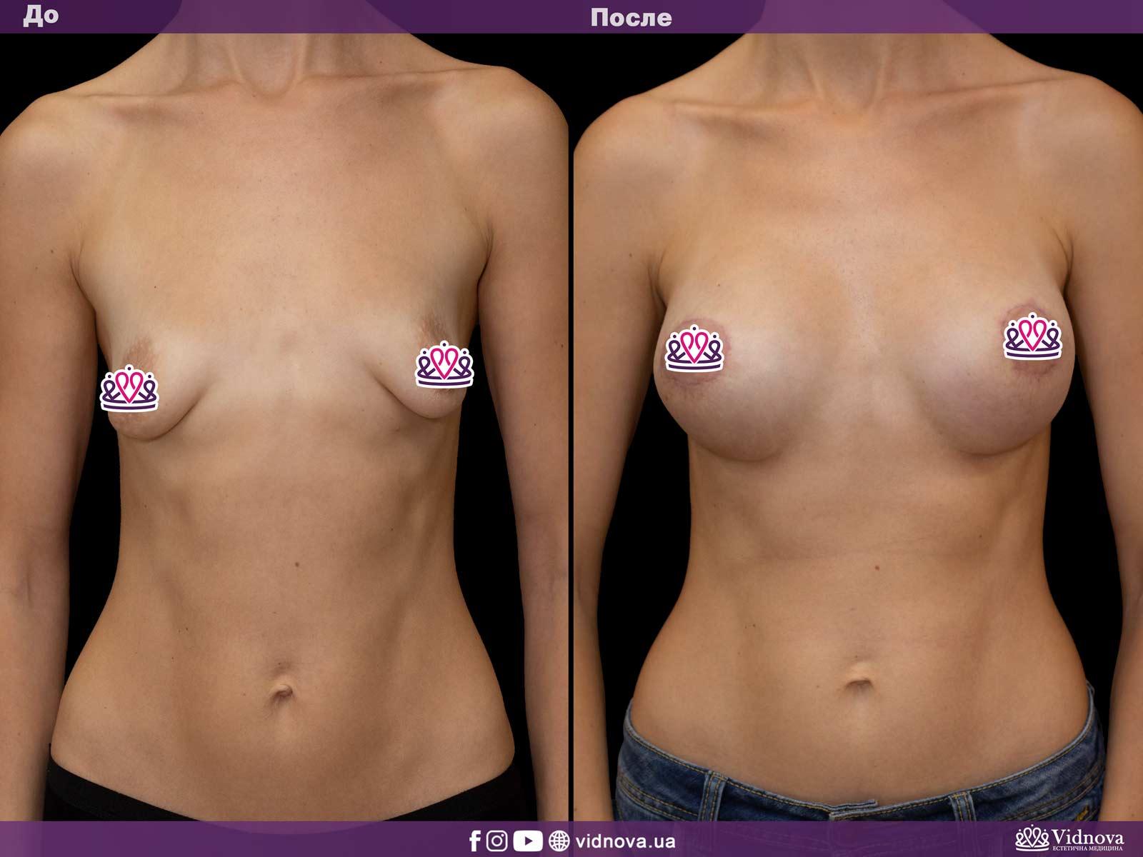 Подтяжка груди: Фото ДО и ПОСЛЕ - Пример №11-1 - Клиника Vidnova