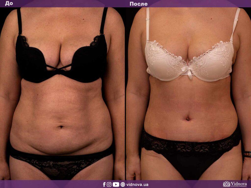абдоминопластика (пластика живота) фото до и после)