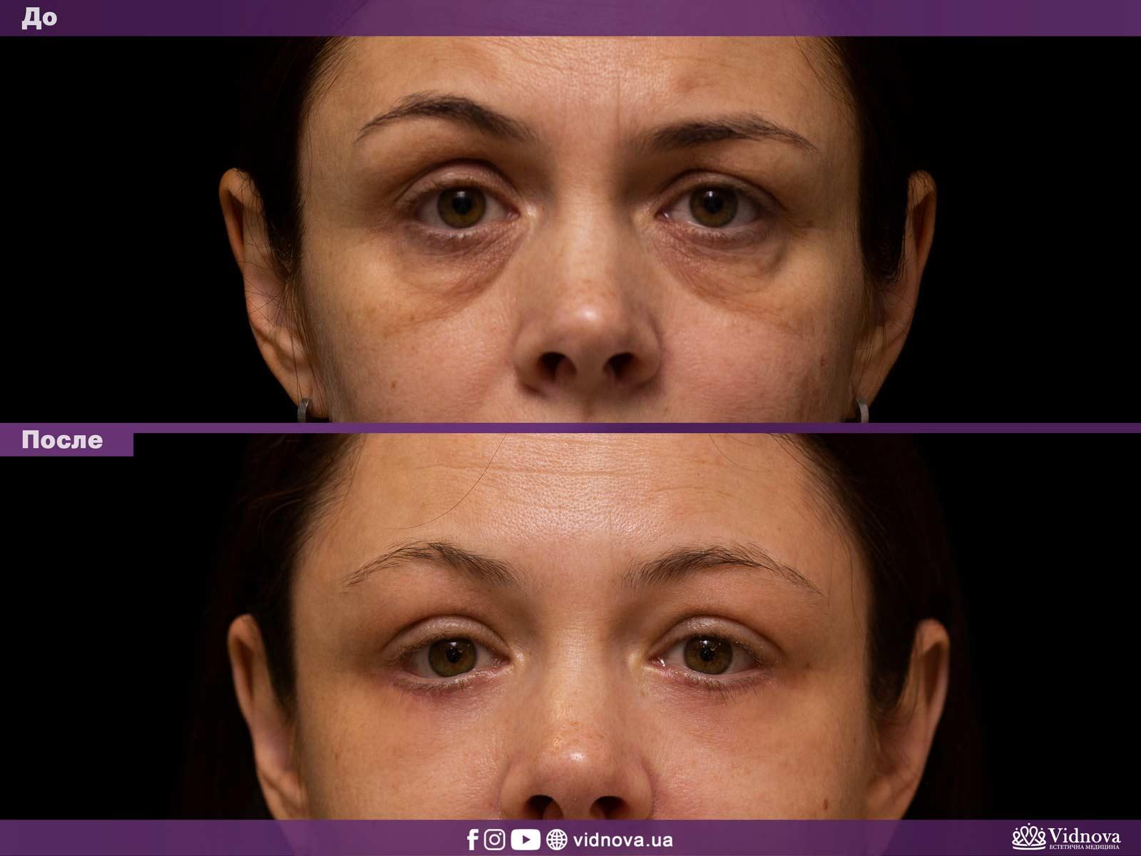 Блефаропластика: Фото До и После - Пример №2-1 - Клиника Vidnova