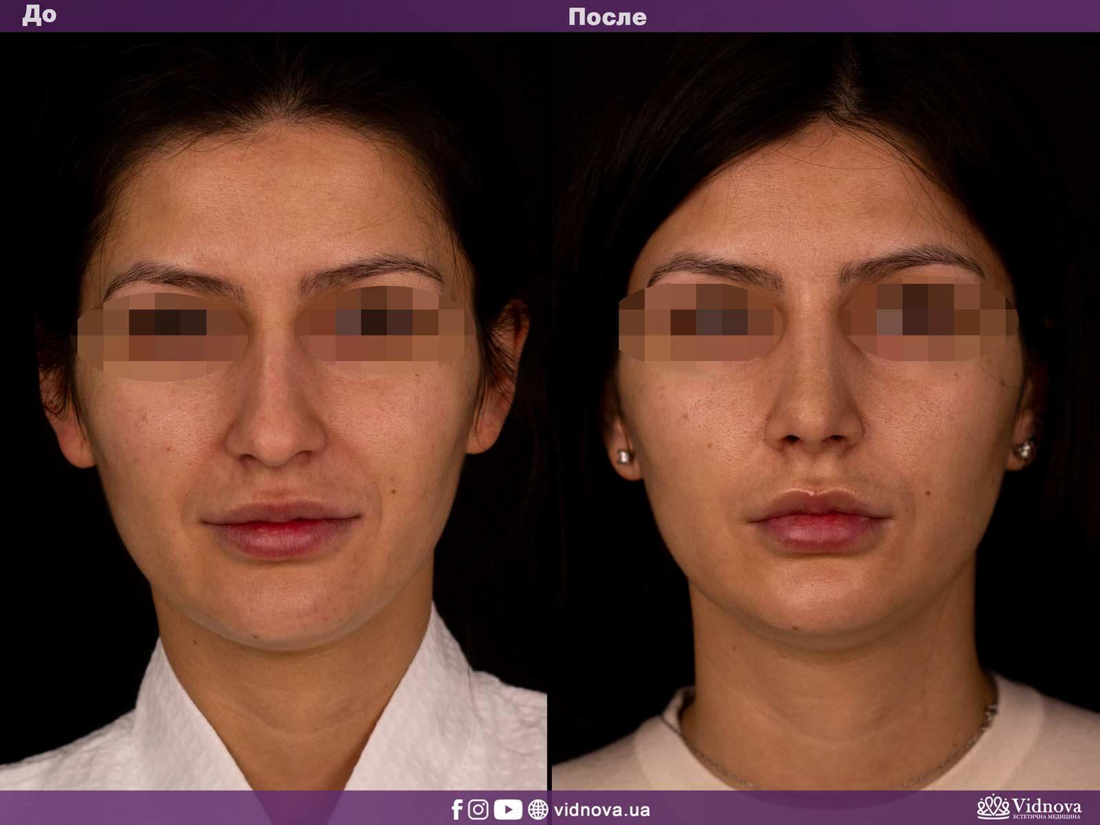 Ринопластика: Фото ДО и ПОСЛЕ - Пример №2-1 - Клиника Vidnova