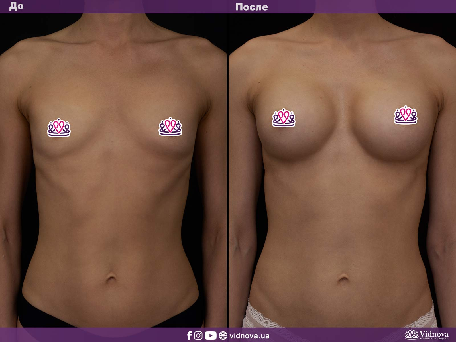 Увеличение груди: Фото ДО и ПОСЛЕ - Пример №21-1 - Клиника Vidnova