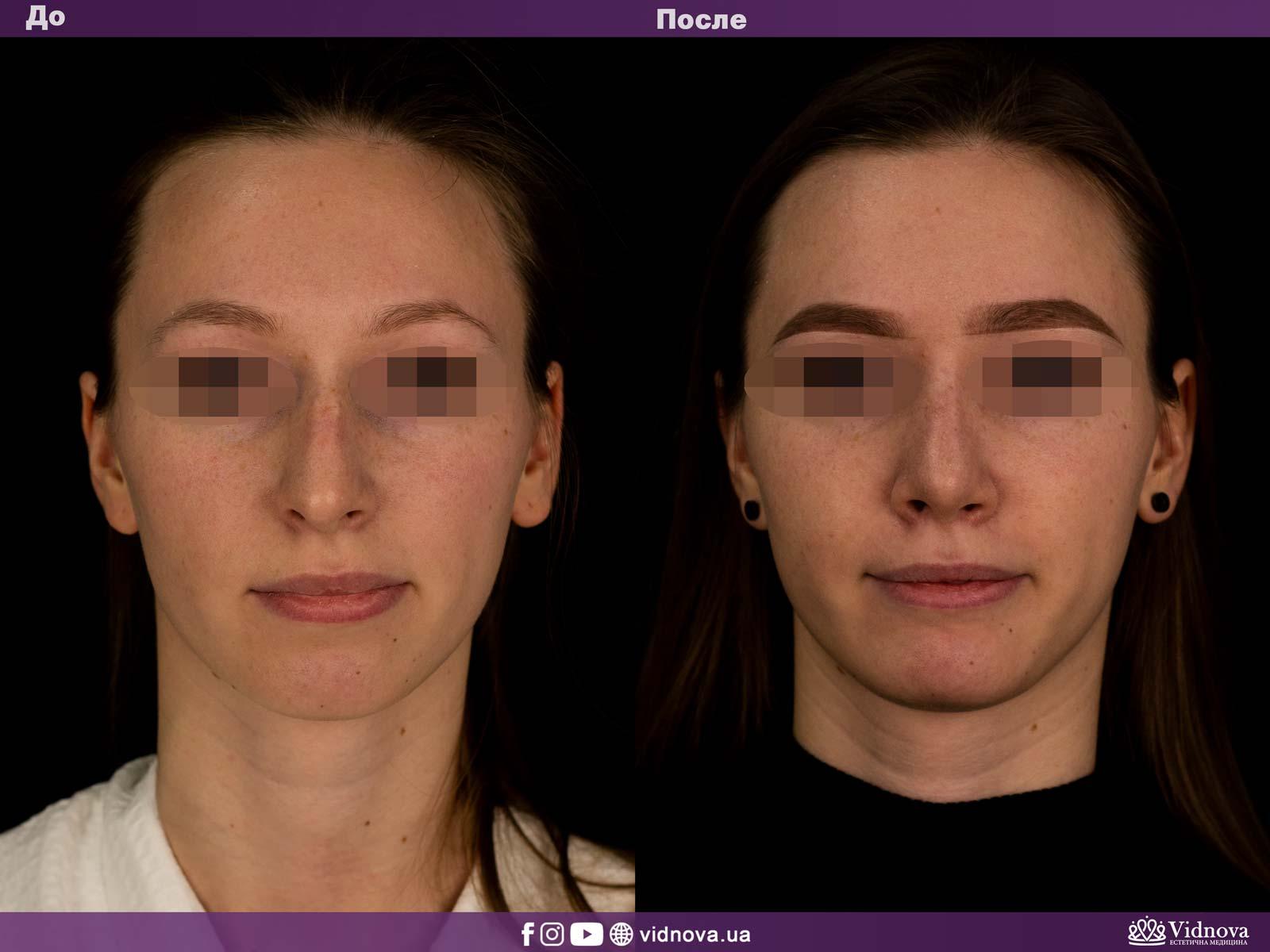 Ринопластика: Фото ДО и ПОСЛЕ - Пример №1-1 - Клиника Vidnova