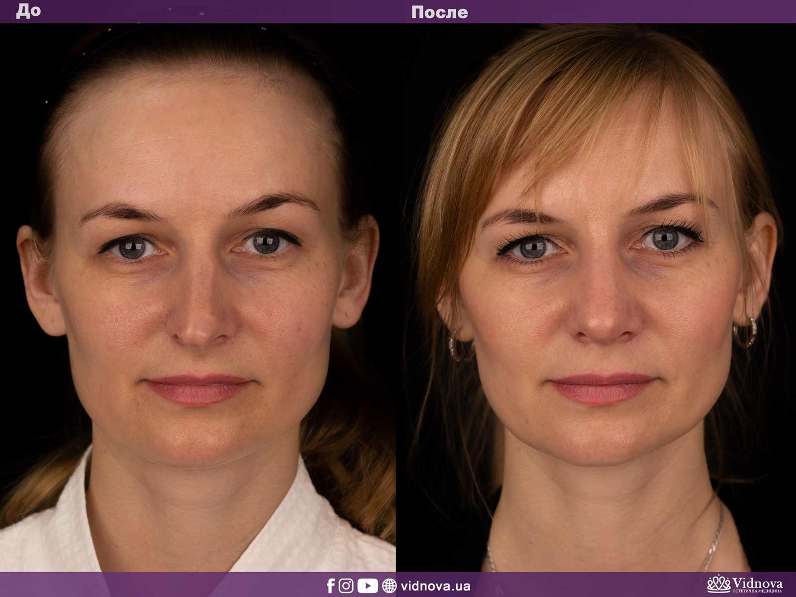 Ринопластика: Фото ДО и ПОСЛЕ - Пример №3-1 - Клиника Vidnova