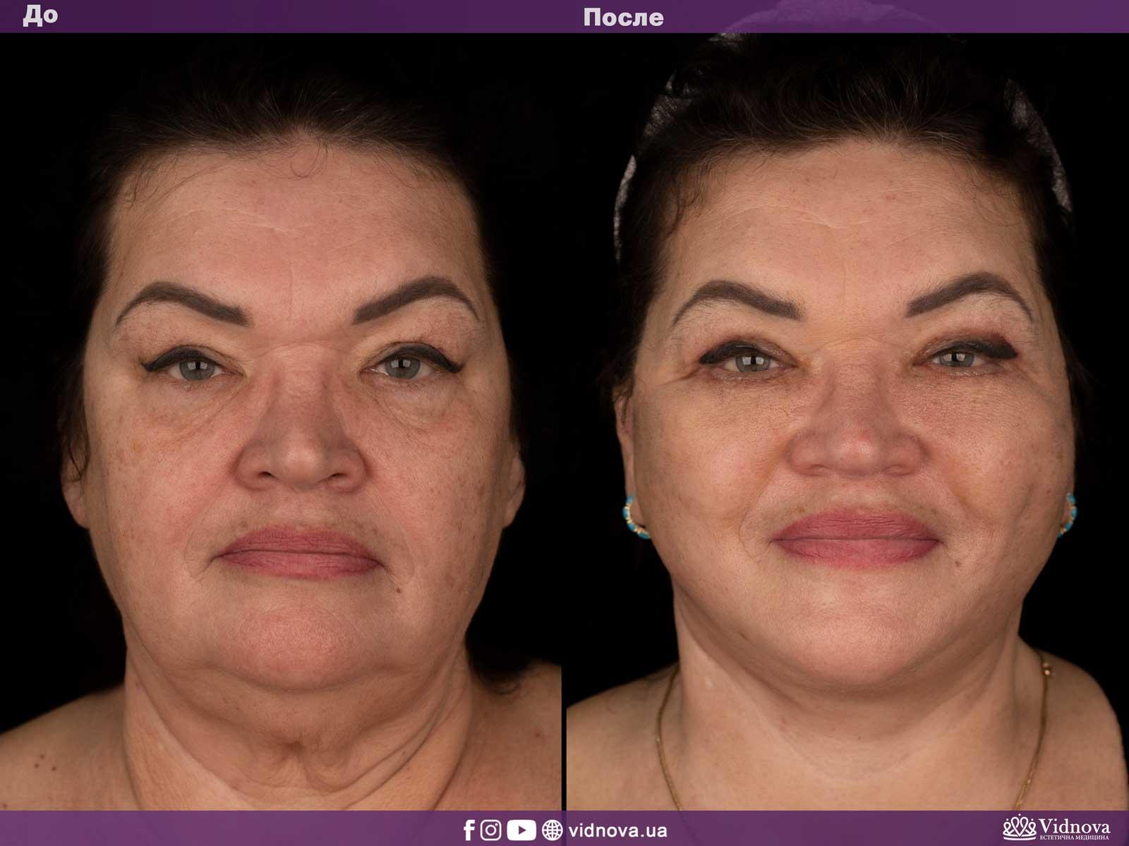 Подтяжка лица и шеи: Фото ДО и ПОСЛЕ - Пример №1-1 - Клиника Vidnova