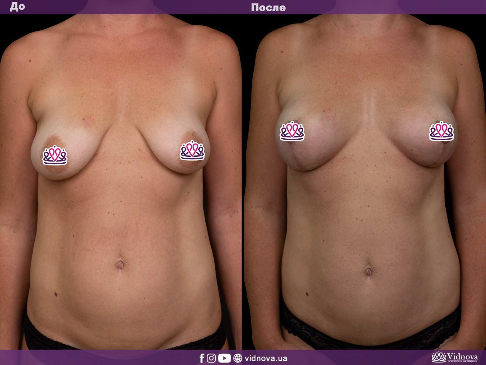Подтяжка груди: Фото ДО и ПОСЛЕ - Пример №12-1 - Клиника Vidnova