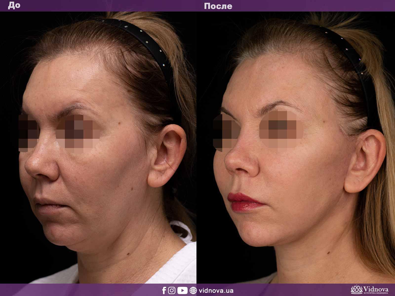 Подтяжка лица и шеи: Фото ДО и ПОСЛЕ - Пример №2-1 - Клиника Vidnova