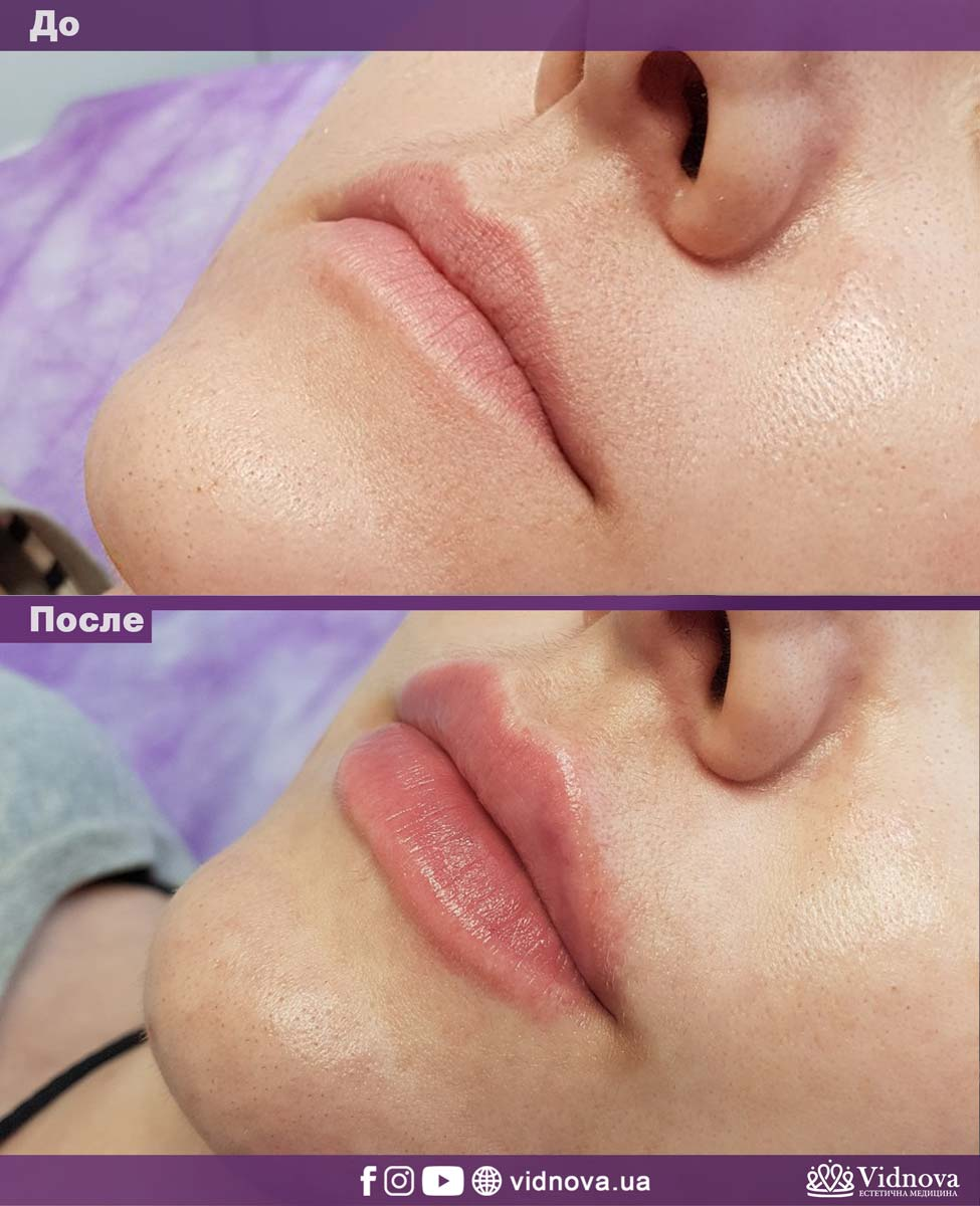 Увеличение губ: Фото До и После - Пример №11-1 - Клиника Vidnova