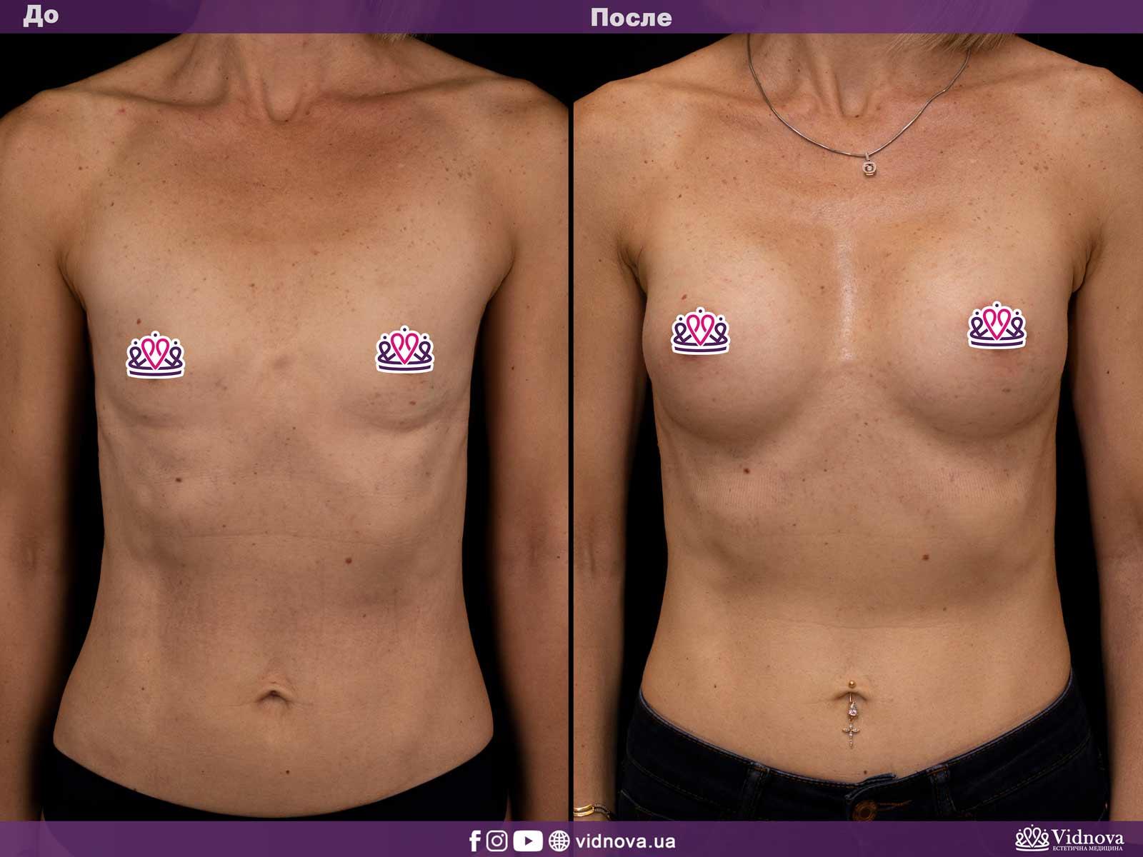 Увеличение груди: Фото ДО и ПОСЛЕ - Пример №14-1 - Клиника Vidnova