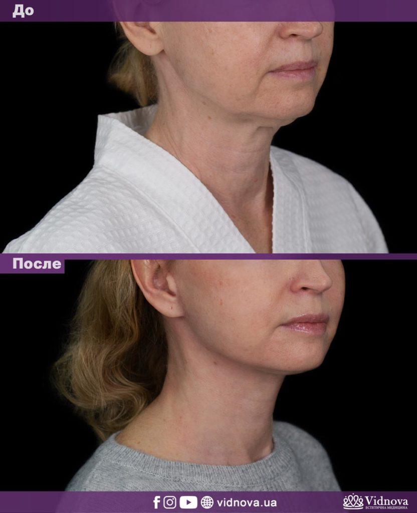 Подтяжка лица и шеи 1vs 6 832x1024 - клиника VIdnova