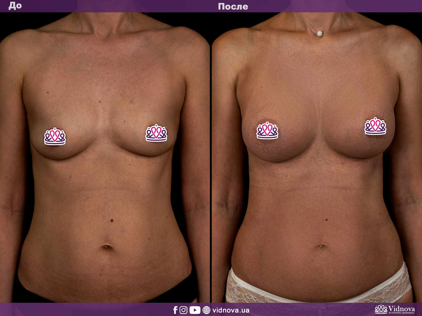 Увеличение груди: Фото ДО и ПОСЛЕ - Пример №3-1 - Клиника Vidnova