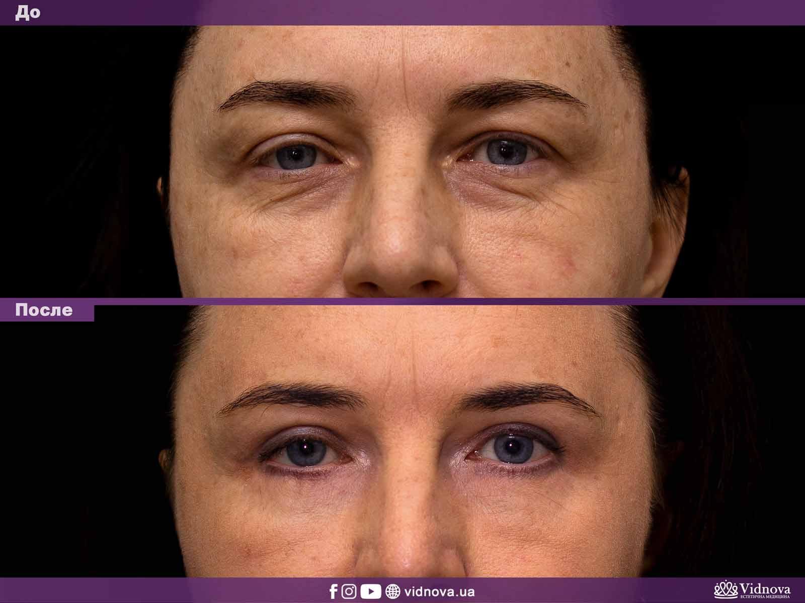 Блефаропластика: Фото До и После - Пример №7-1 - Клиника Vidnova