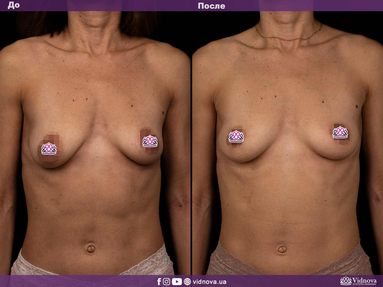 Подтяжка груди: Фото ДО и ПОСЛЕ - Пример №9-1 - Клиника Vidnova