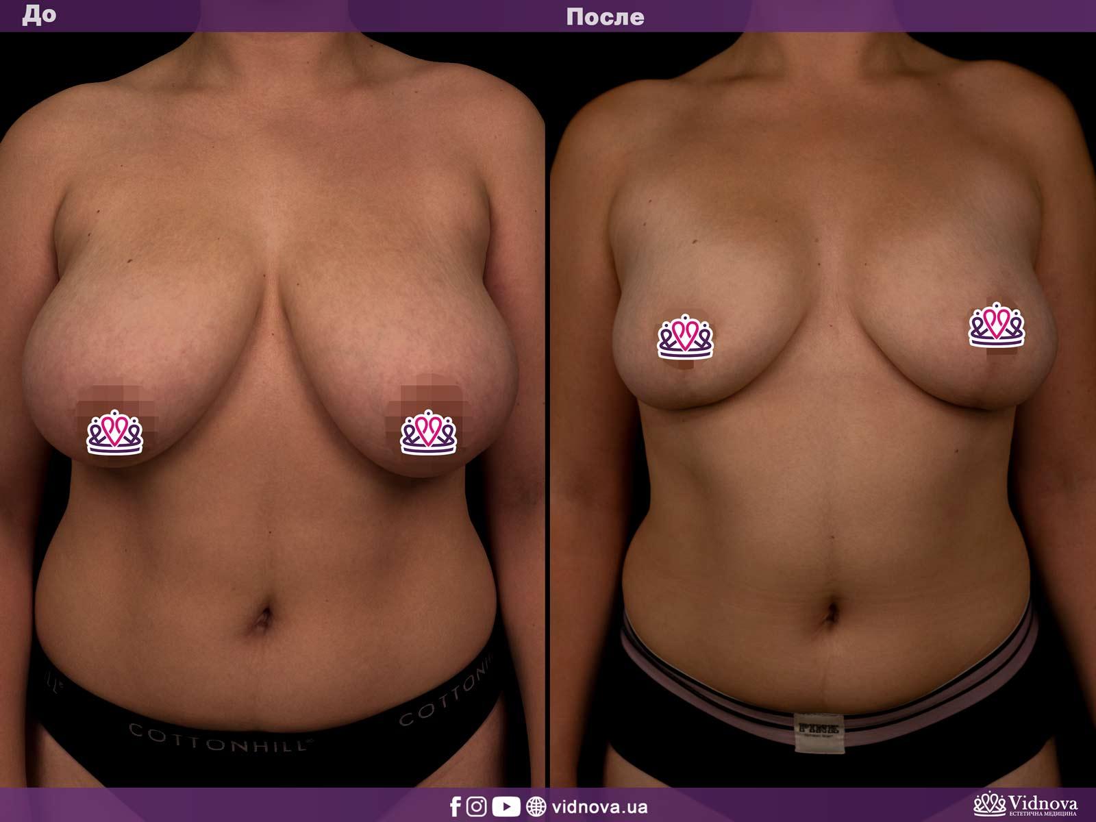 Уменьшение груди: Фото ДО и ПОСЛЕ - Пример №3-1 - Клиника Vidnova