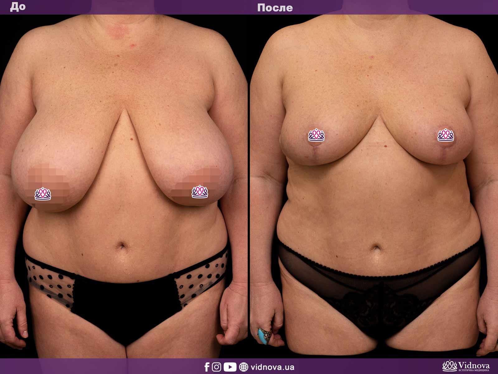 Уменьшение груди: Фото ДО и ПОСЛЕ - Пример №2-1 - Клиника Vidnova