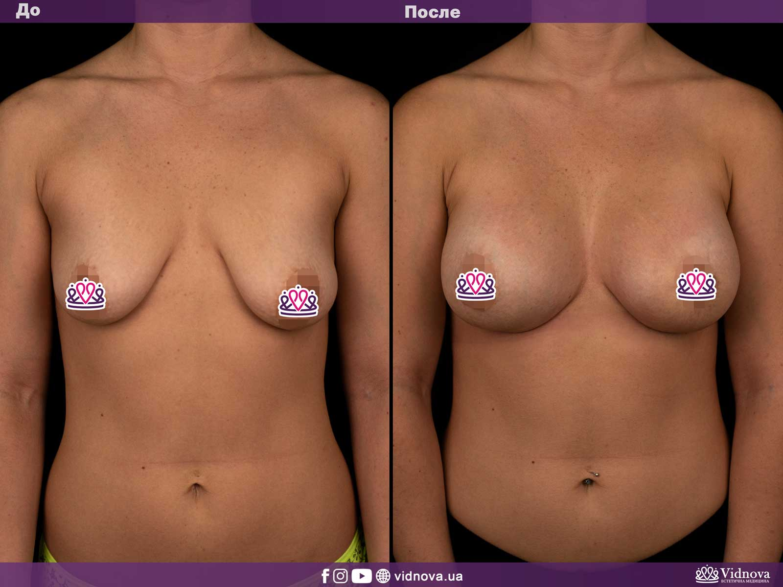 Подтяжка груди: Фото ДО и ПОСЛЕ - Пример №6-1 - Клиника Vidnova