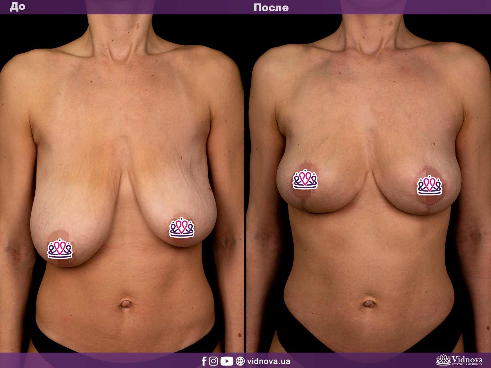 Подтяжка груди: Фото ДО и ПОСЛЕ - Пример №5-1 - Клиника Vidnova