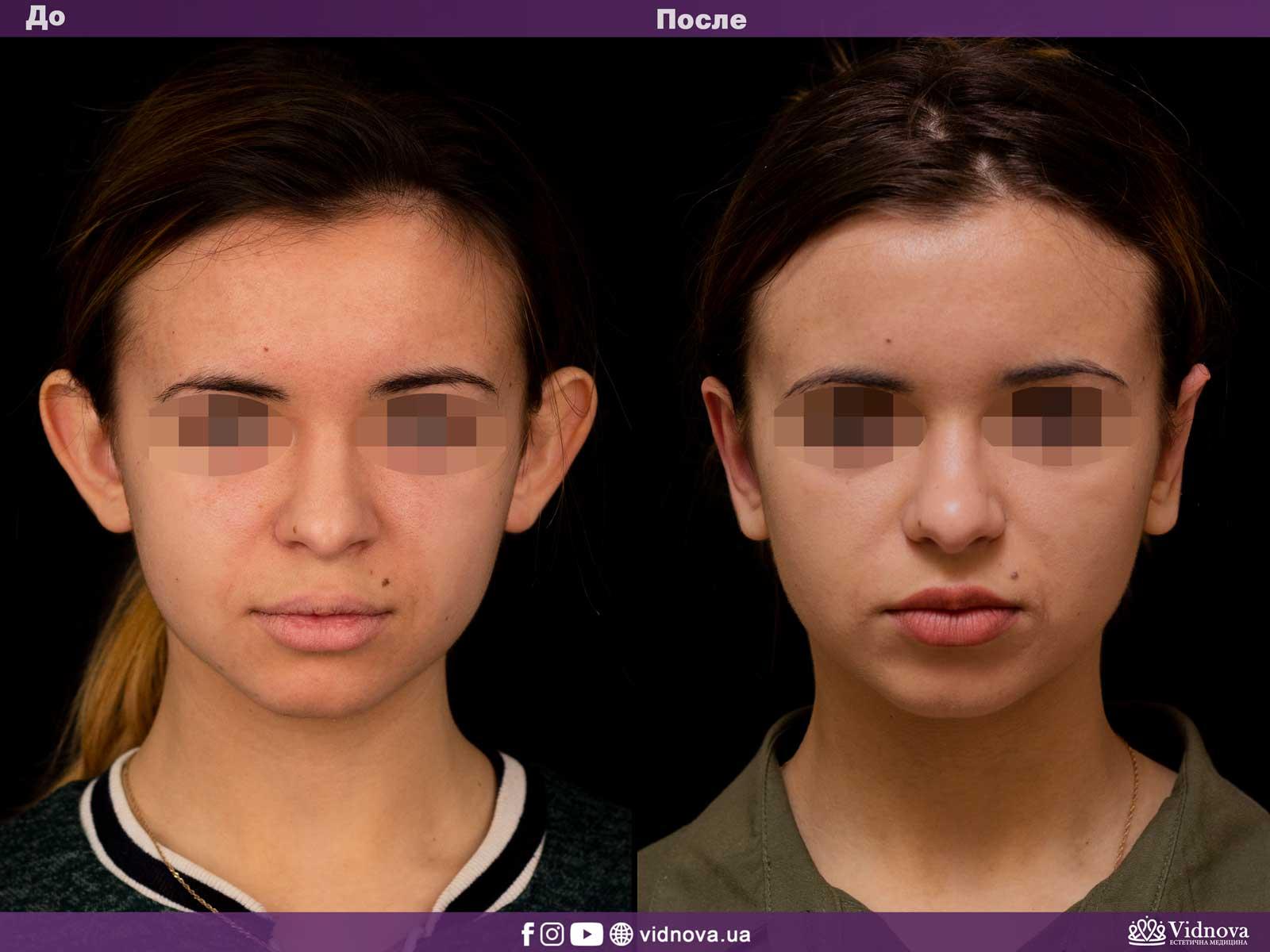 Отопластика: Фото До и После - Пример №3-1 - Клиника Vidnova