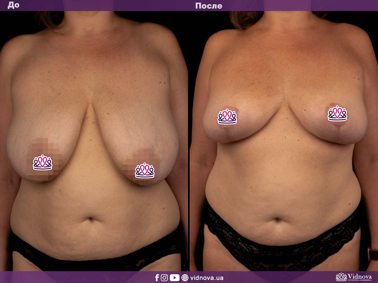 Уменьшение груди: Фото ДО и ПОСЛЕ - Пример №1-1 - Клиника Vidnova