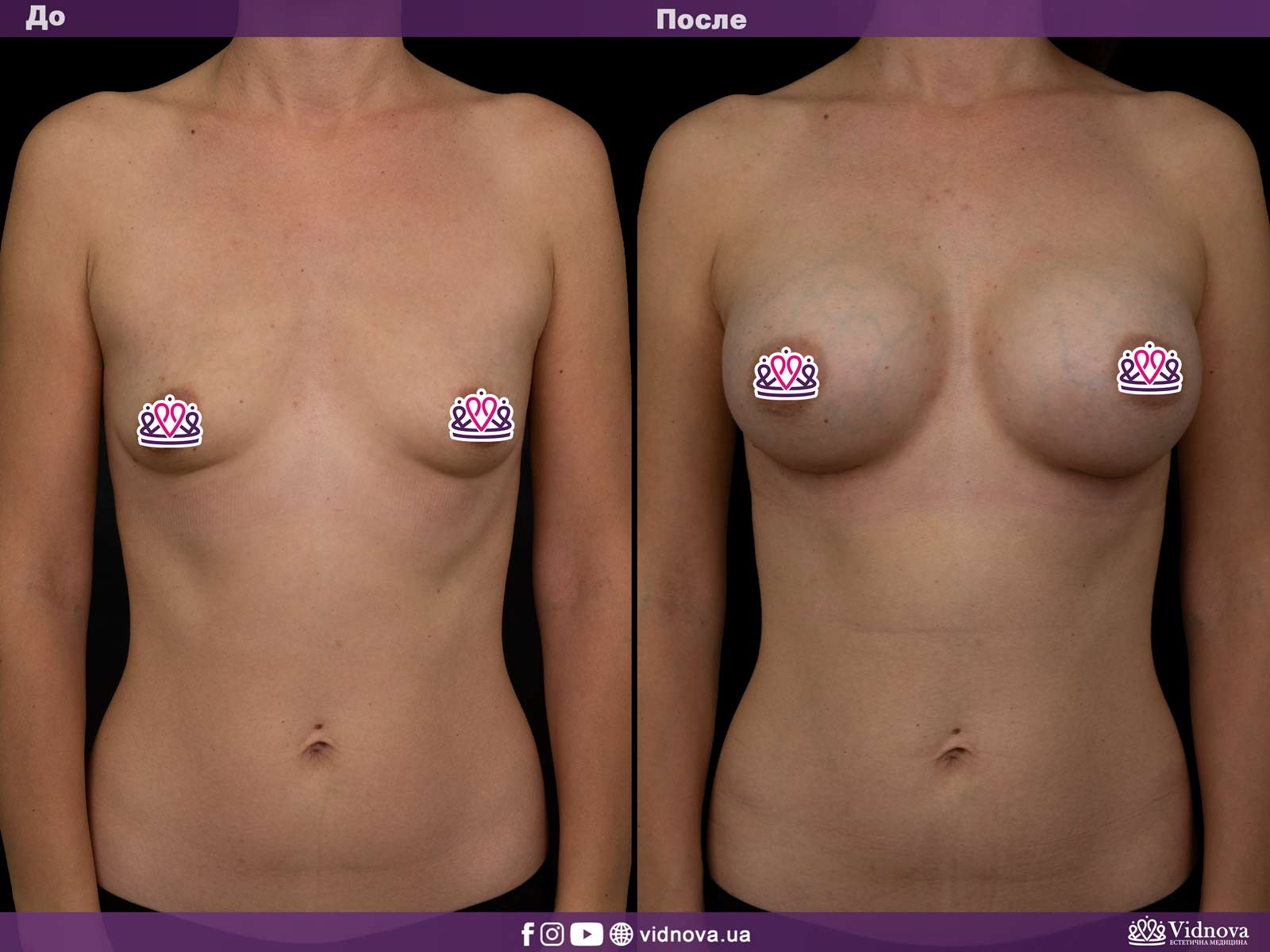 Увеличение груди: Фото ДО и ПОСЛЕ - Пример №8-1 - Клиника Vidnova