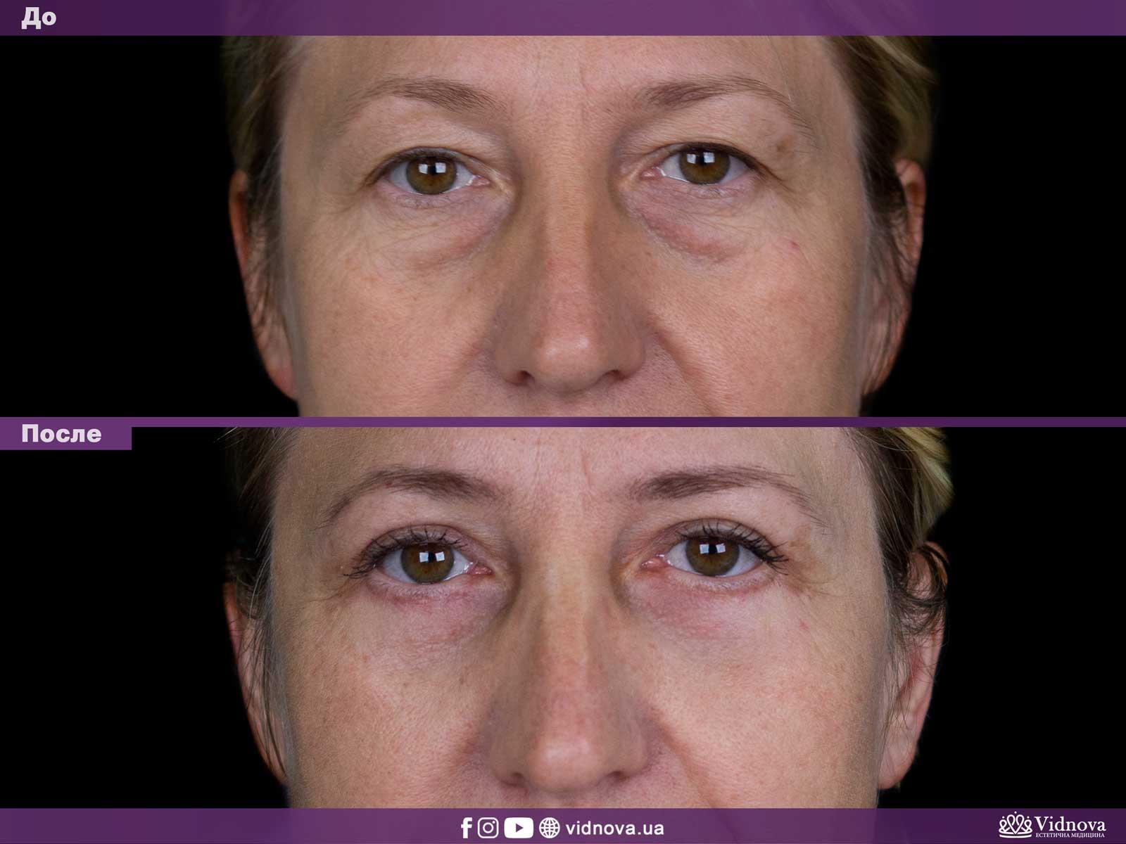 Блефаропластика: Фото До и После - Пример №15-1 - Клиника Vidnova