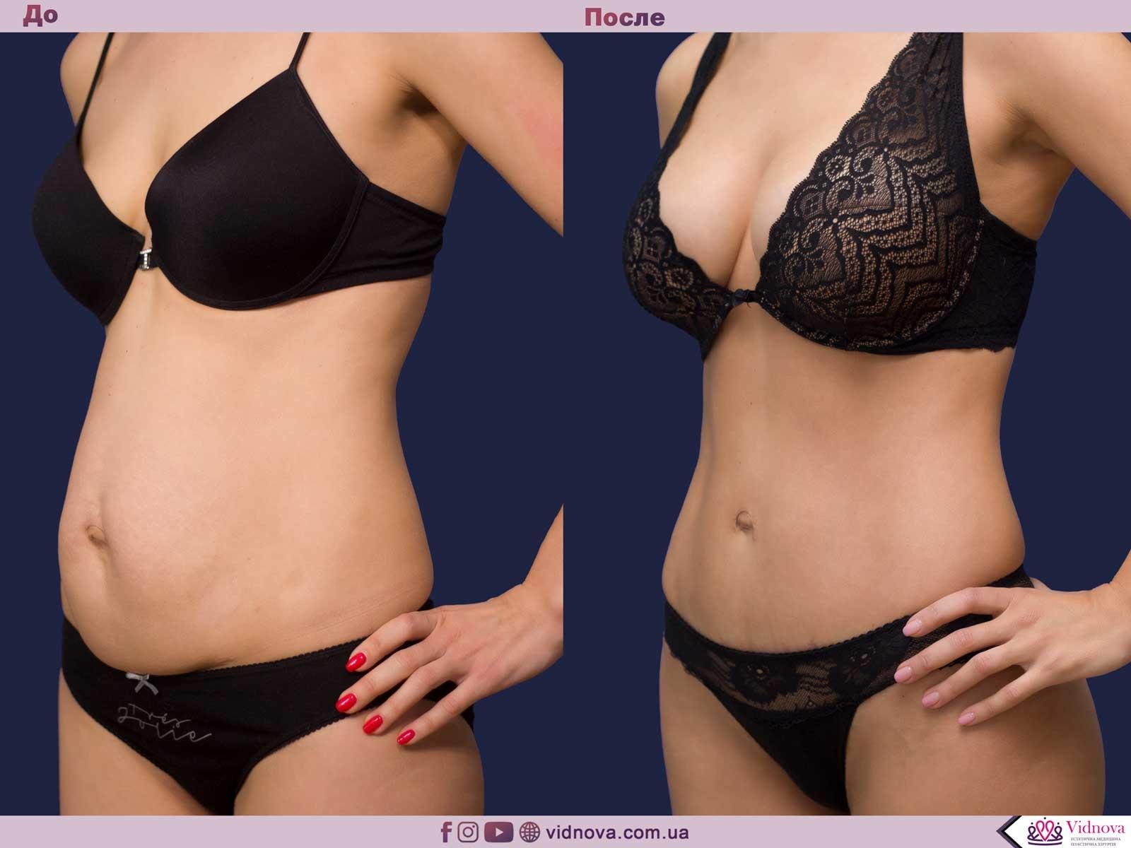 Совмещенные операции: Фото До и После - Пример №10-3 - Клиника Vidnova