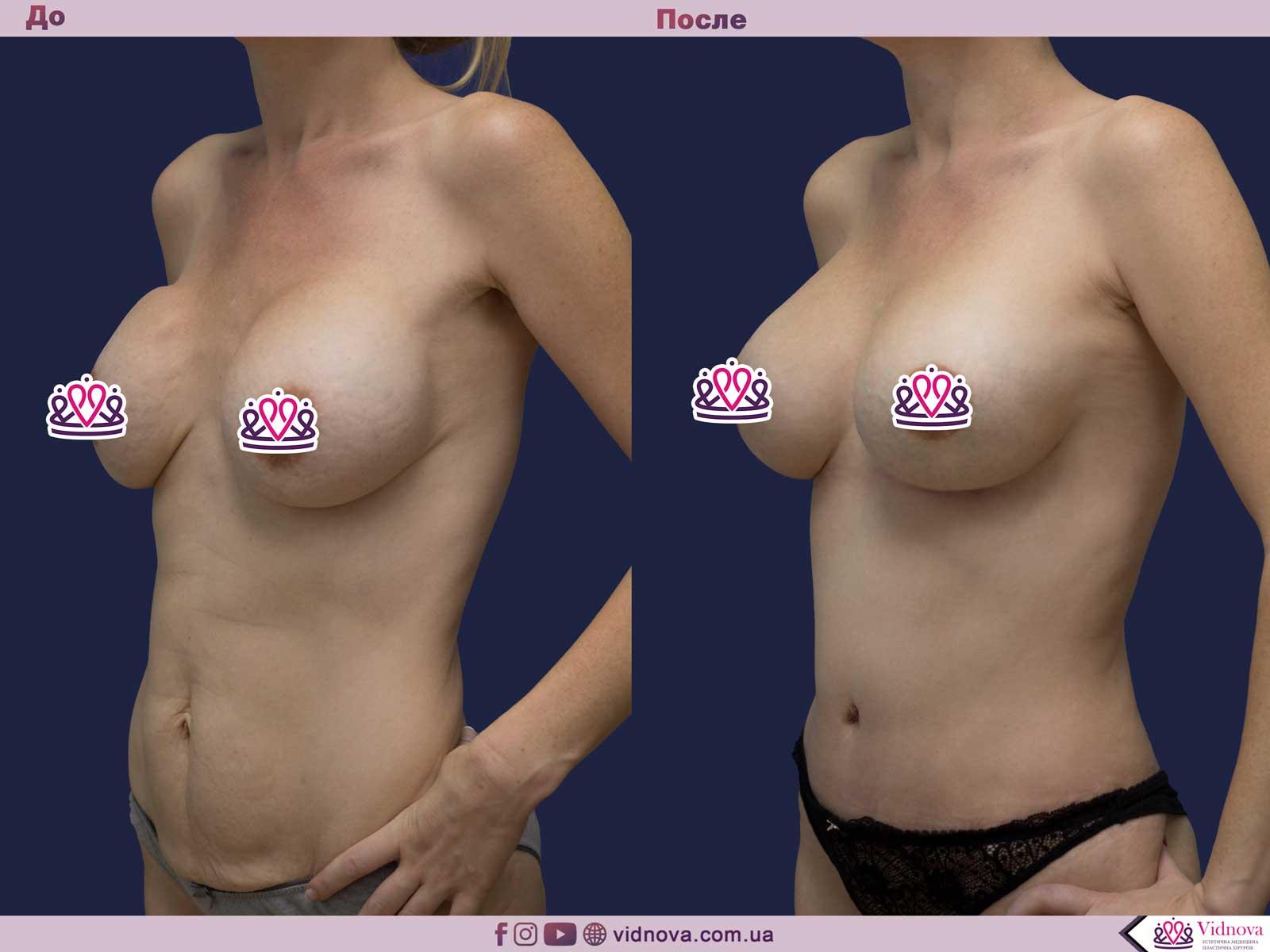 Увеличение груди: Фото ДО и ПОСЛЕ - Пример №82-2 - Клиника Vidnova
