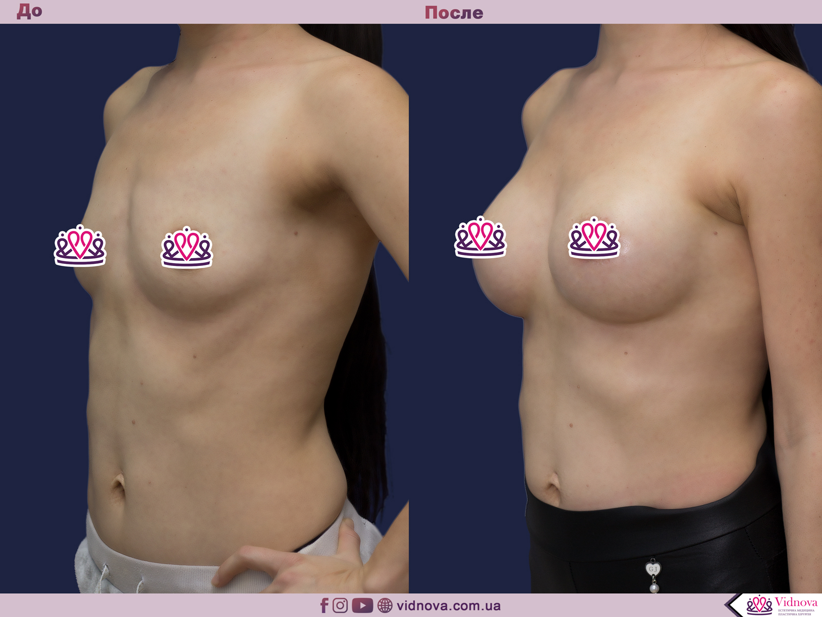 Увеличение груди: Фото ДО и ПОСЛЕ - Пример №73-2 - Клиника Vidnova