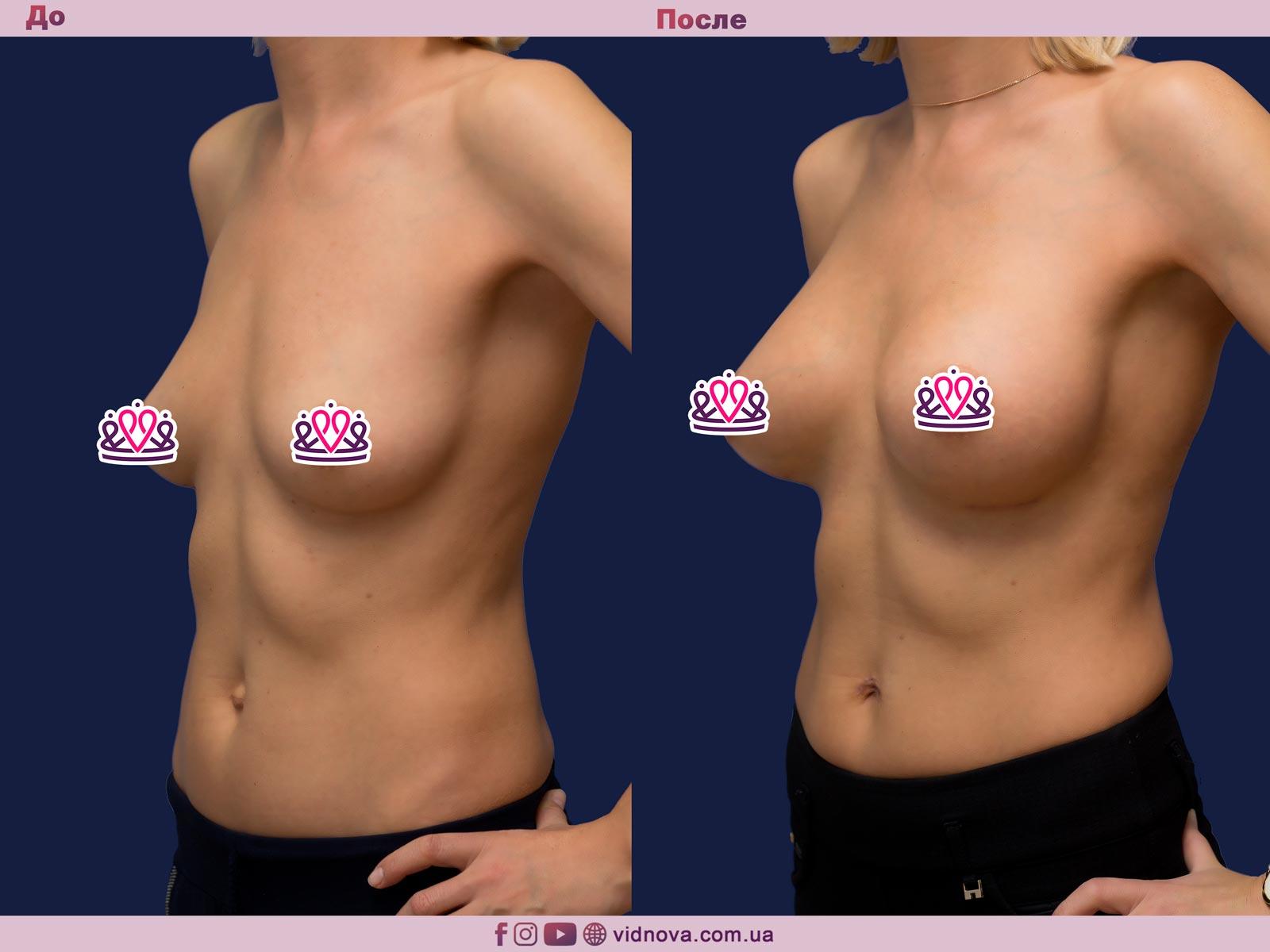 Увеличение груди: Фото ДО и ПОСЛЕ - Пример №81-2 - Клиника Vidnova
