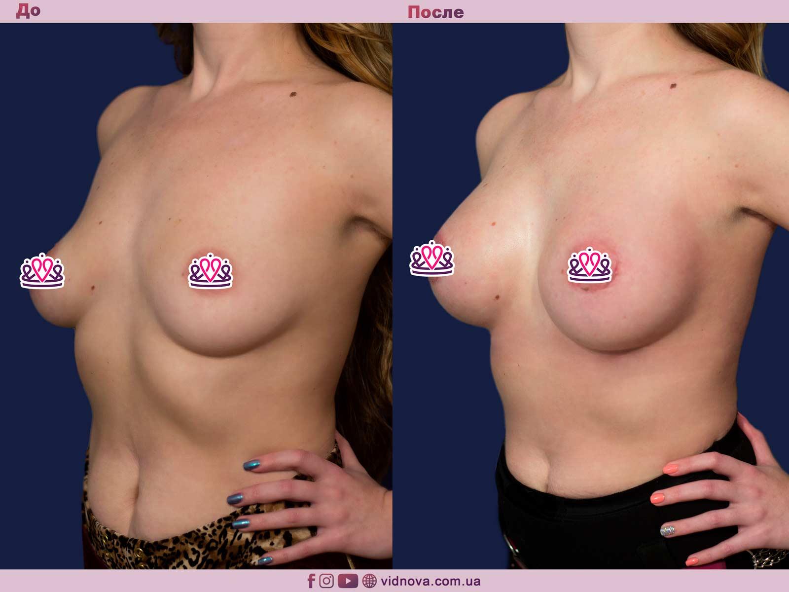 Увеличение груди: Фото ДО и ПОСЛЕ - Пример №77-2 - Клиника Vidnova
