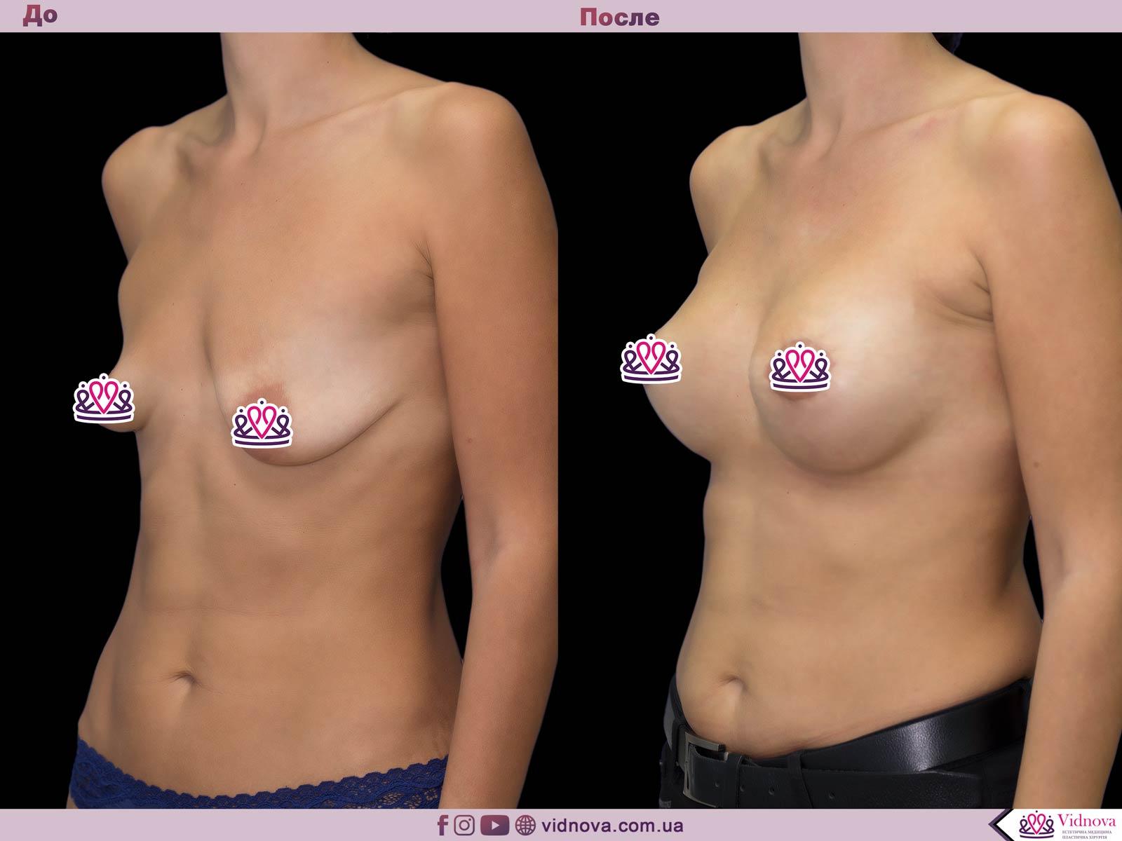 Подтяжка груди: Фото ДО и ПОСЛЕ - Пример №19-2 - Клиника Vidnova