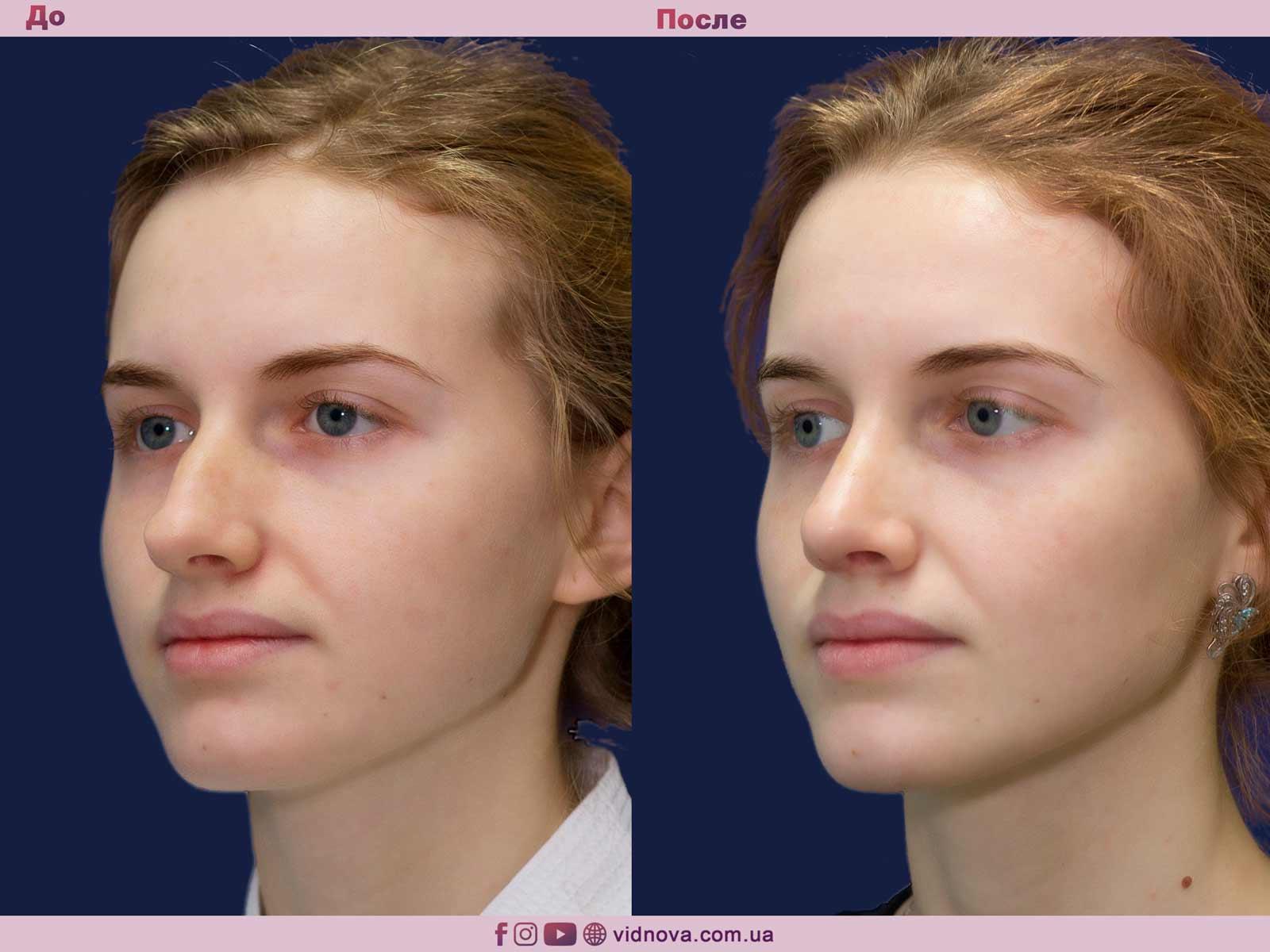 Ринопластика: Фото ДО и ПОСЛЕ - Пример №9-2 - Клиника Vidnova