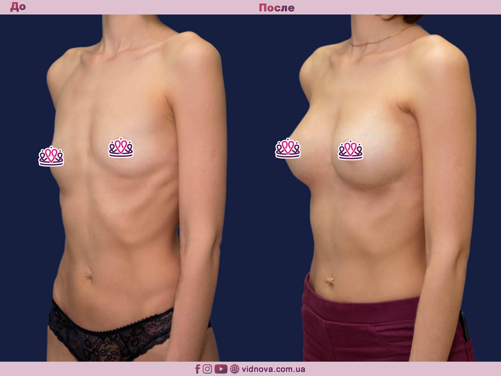 Увеличение груди: Фото ДО и ПОСЛЕ - Пример №76-2 - Клиника Vidnova