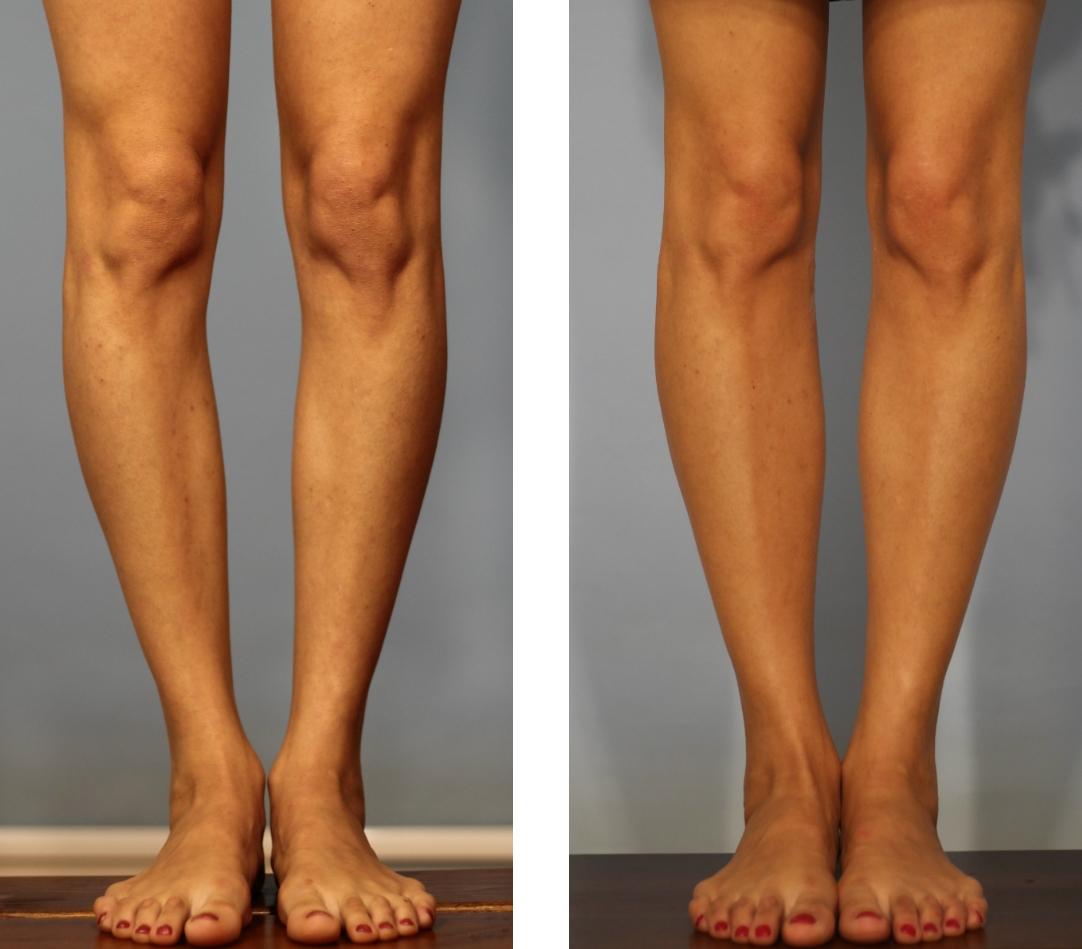 кривые ноги вид сзади фото надежда человечества