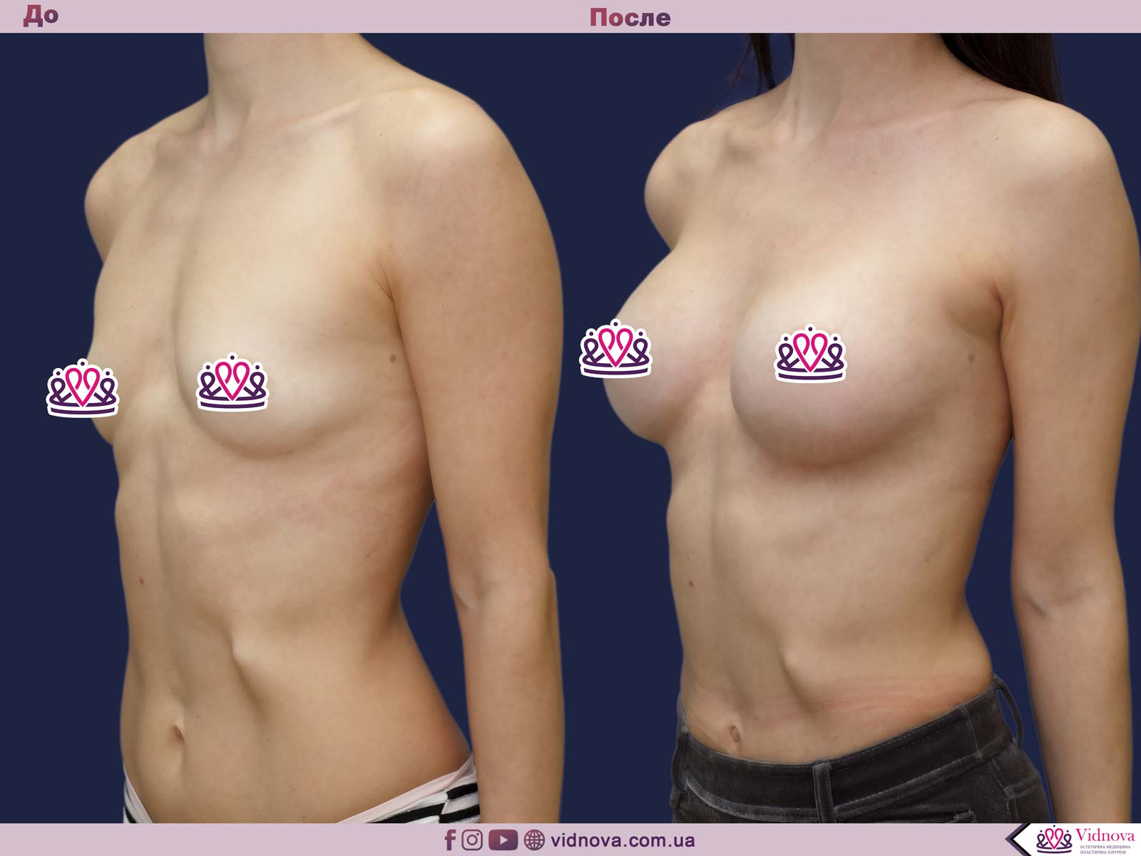 Увеличение груди: Фото ДО и ПОСЛЕ - Пример №69-2 - Клиника Vidnova