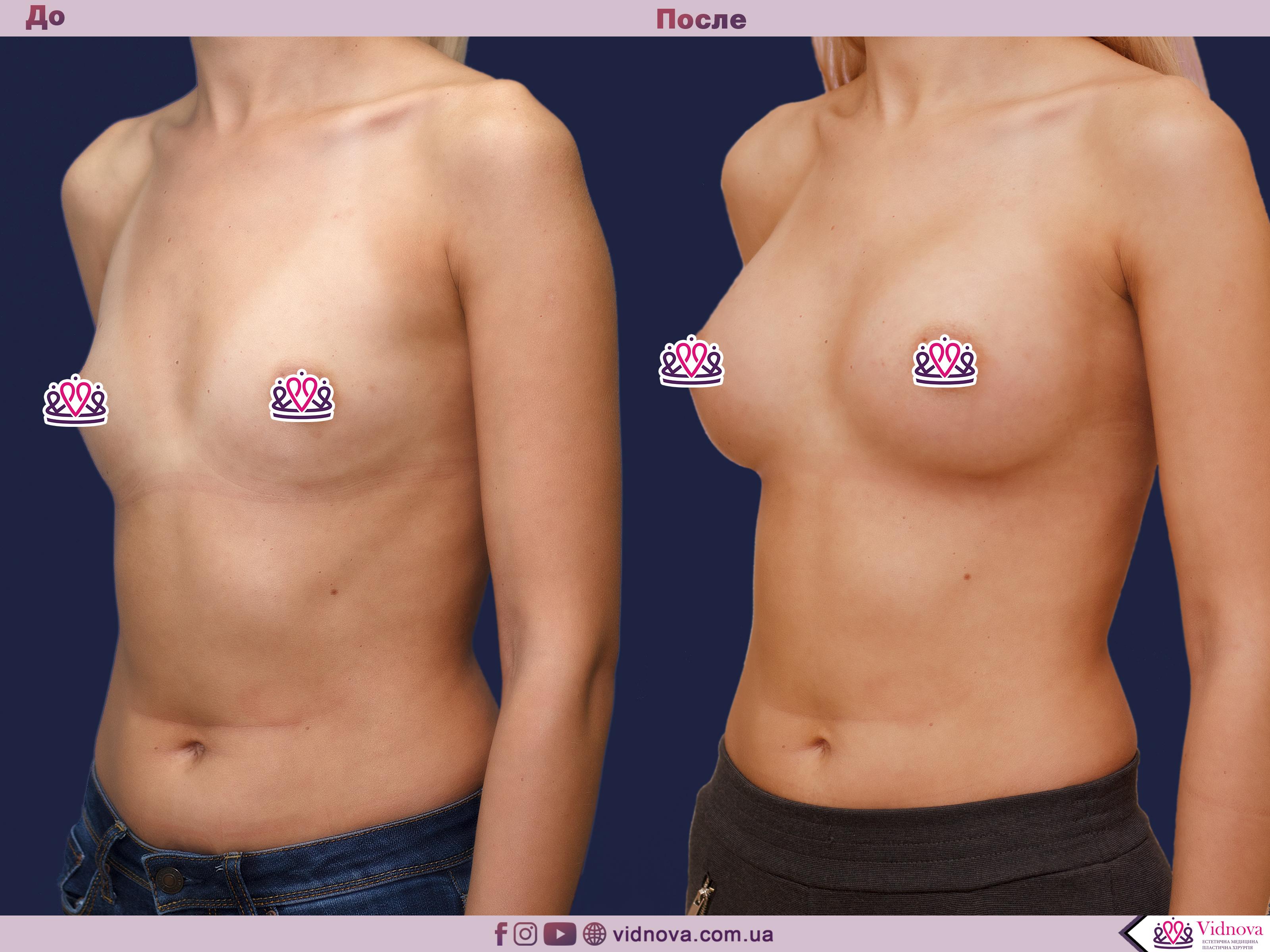 Увеличение груди: Фото ДО и ПОСЛЕ - Пример №67-2 - Клиника Vidnova