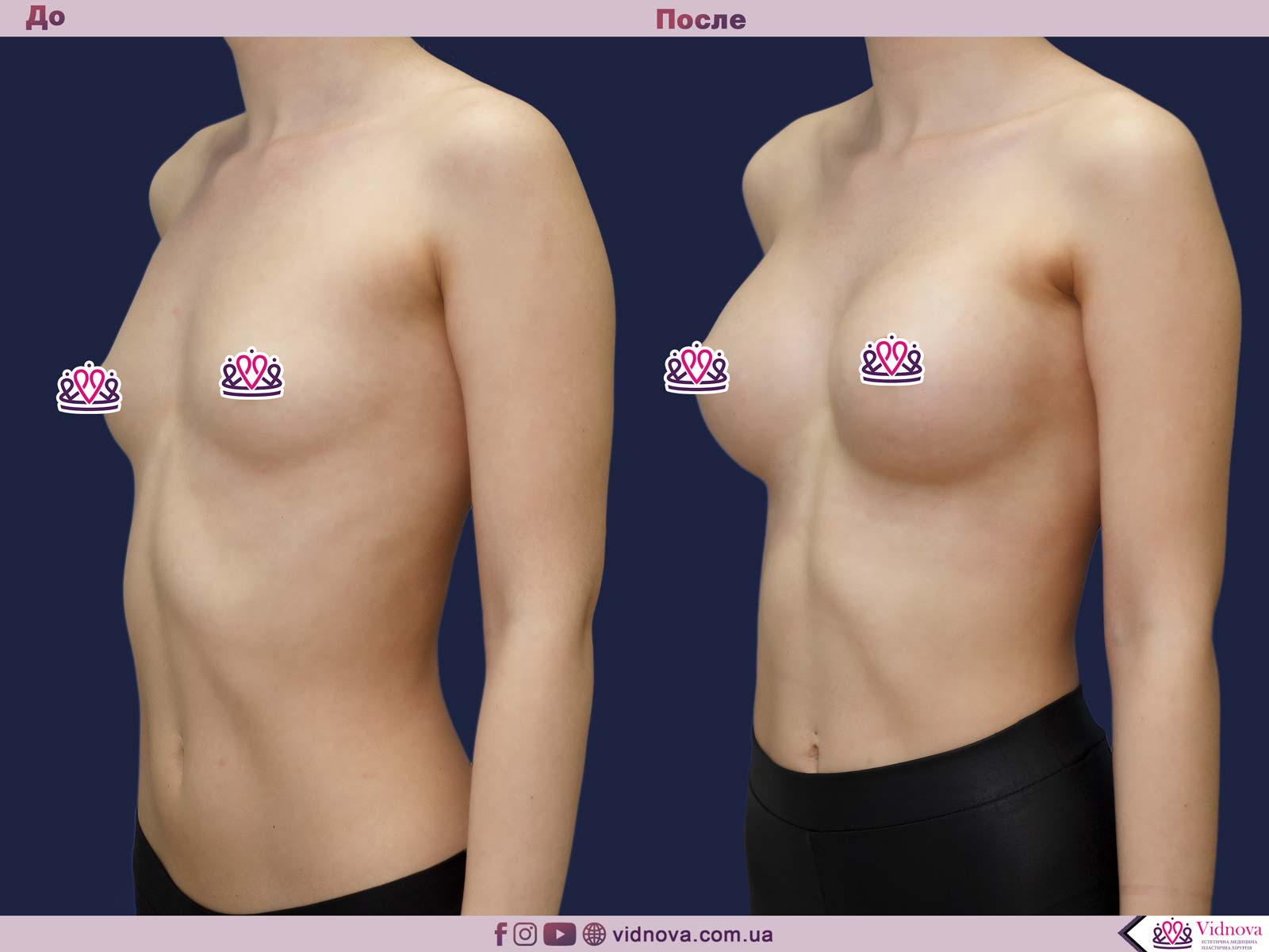 Увеличение груди: Фото ДО и ПОСЛЕ - Пример №72-2 - Клиника Vidnova