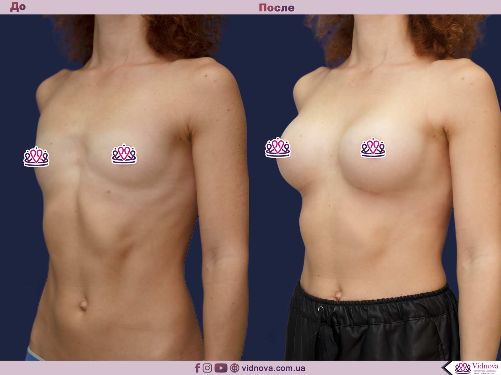 Увеличение груди: Фото ДО и ПОСЛЕ - Пример №70-2 - Клиника Vidnova