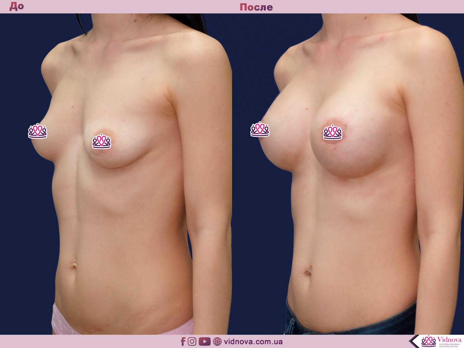 Подтяжка груди: Фото ДО и ПОСЛЕ - Пример №23-2 - Клиника Vidnova