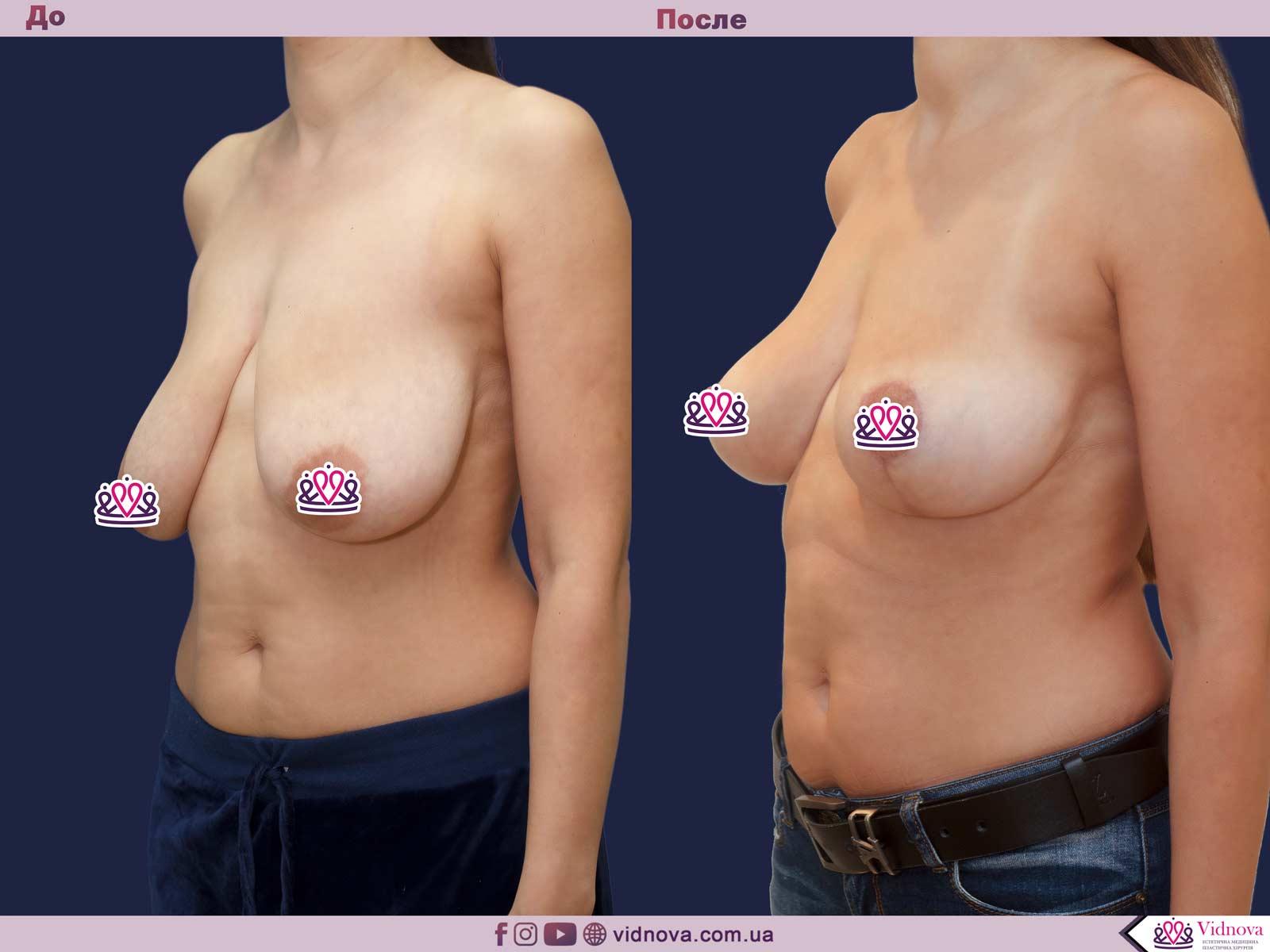 Подтяжка груди: Фото ДО и ПОСЛЕ - Пример №24-2 - Клиника Vidnova