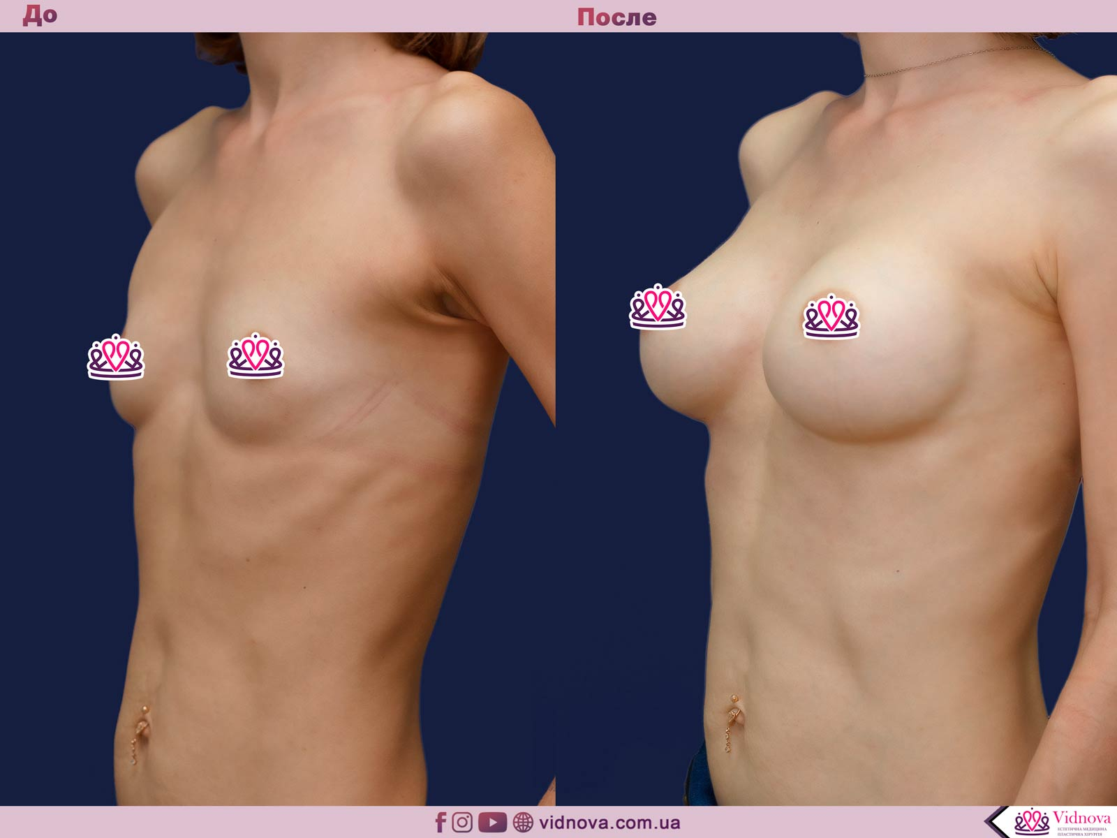 Увеличение груди: Фото ДО и ПОСЛЕ - Пример №65-2 - Клиника Vidnova