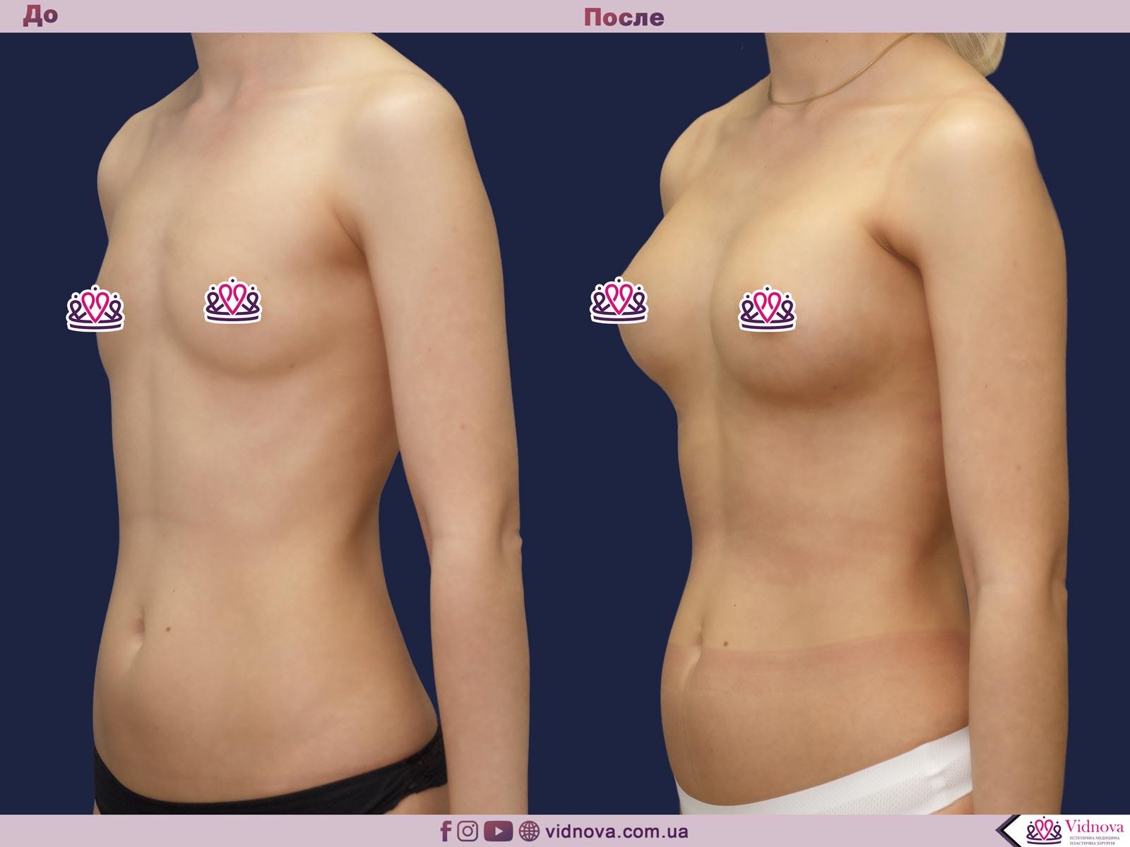 Увеличение груди: Фото ДО и ПОСЛЕ - Пример №63-2 - Клиника Vidnova
