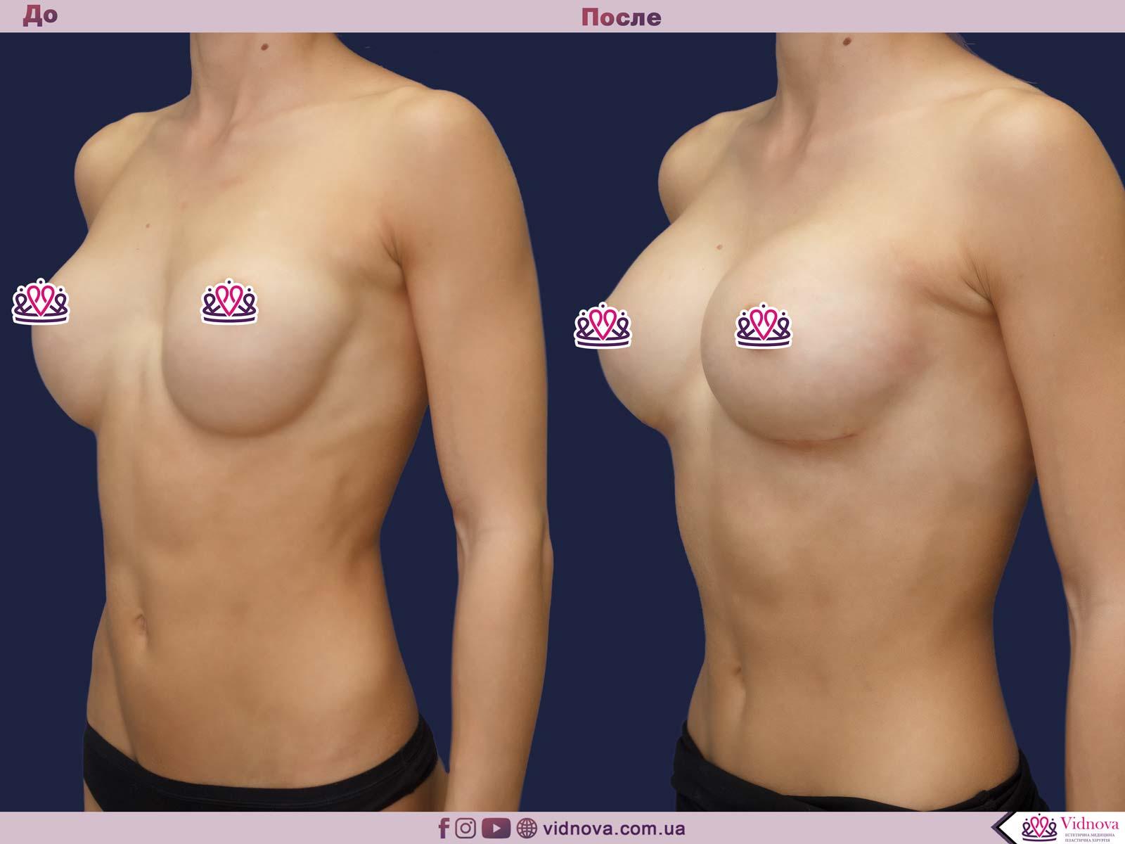 Увеличение груди: Фото ДО и ПОСЛЕ - Пример №64-2 - Клиника Vidnova