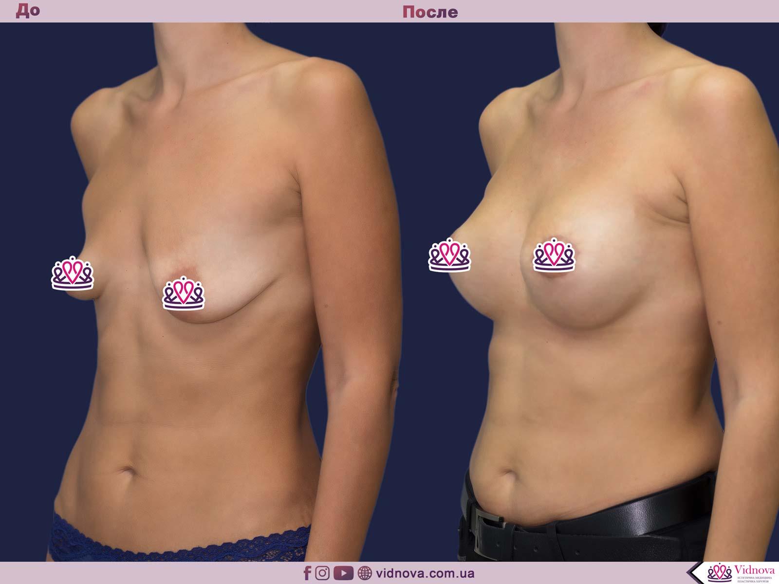 Увеличение груди: Фото ДО и ПОСЛЕ - Пример №68-2 - Клиника Vidnova