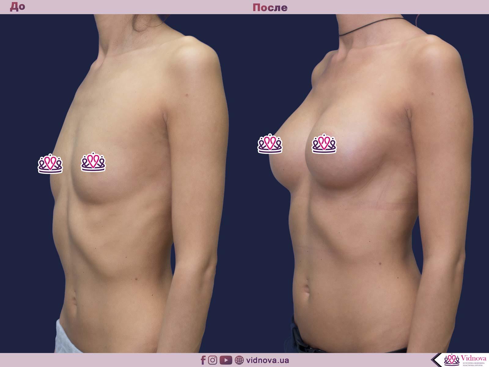 Увеличение груди: Фото ДО и ПОСЛЕ - Пример №60-2 - Клиника Vidnova