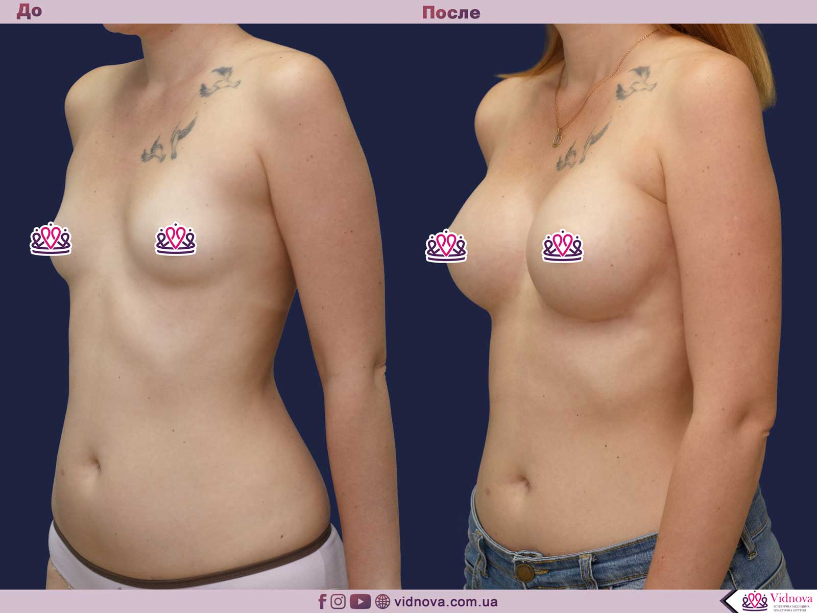 Увеличение груди: Фото ДО и ПОСЛЕ - Пример №61-2 - Клиника Vidnova